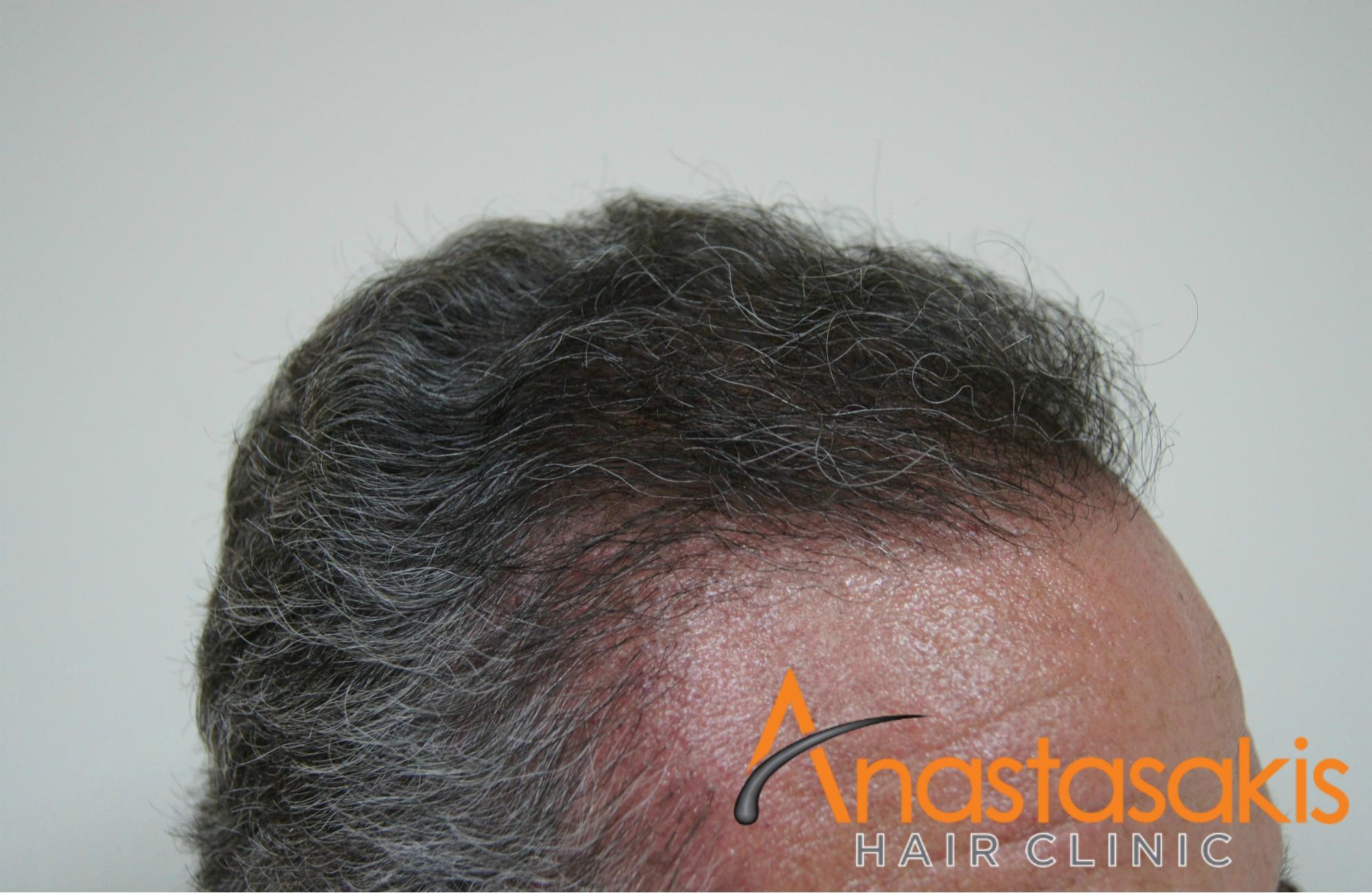 δεξι προφιλ ασθενους μετα τη μεταμοσχευση μαλλιων με 3200 fus