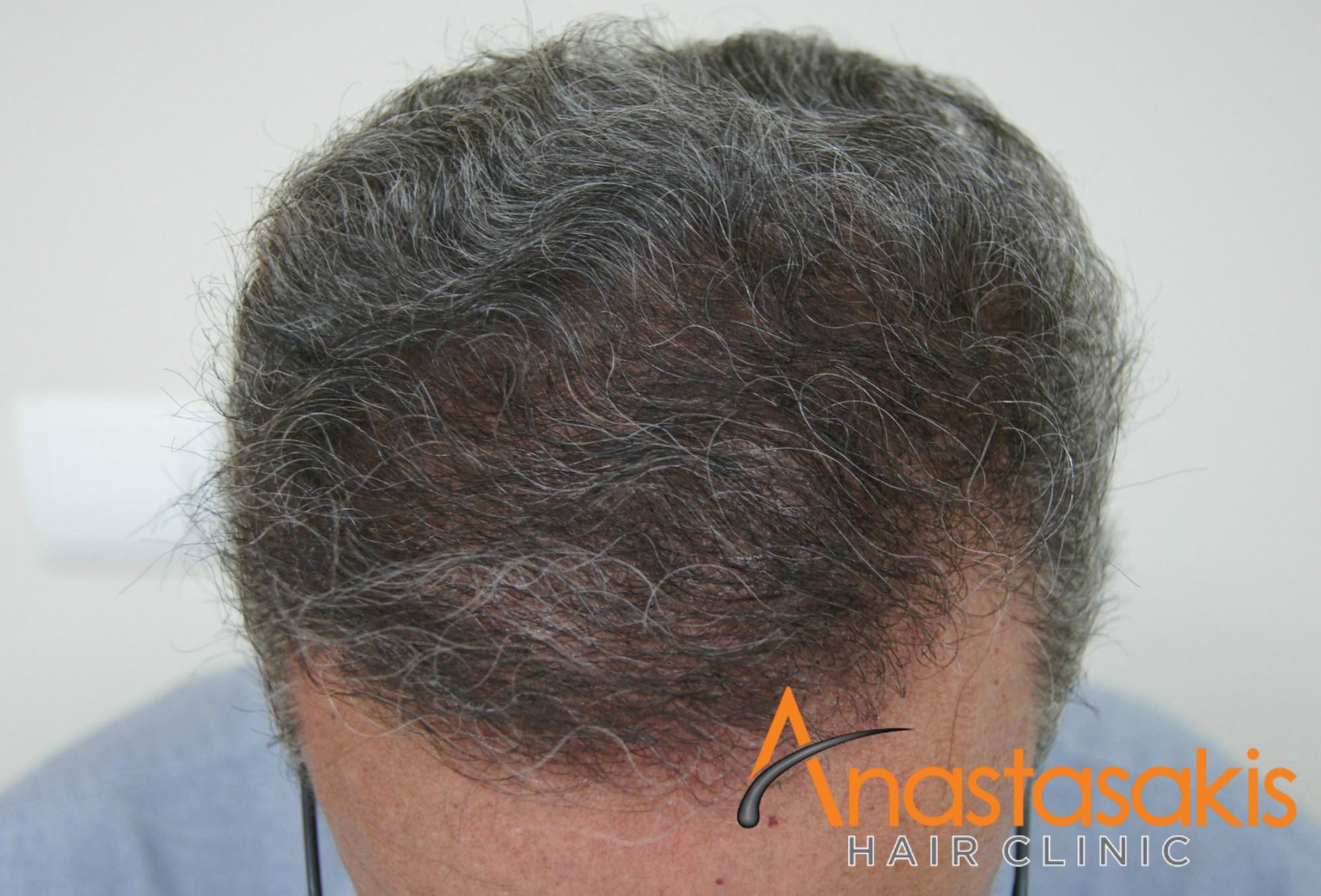 προσθια ασθενους μετα τη μεταμοσχευση μαλλιων με 3200 fus
