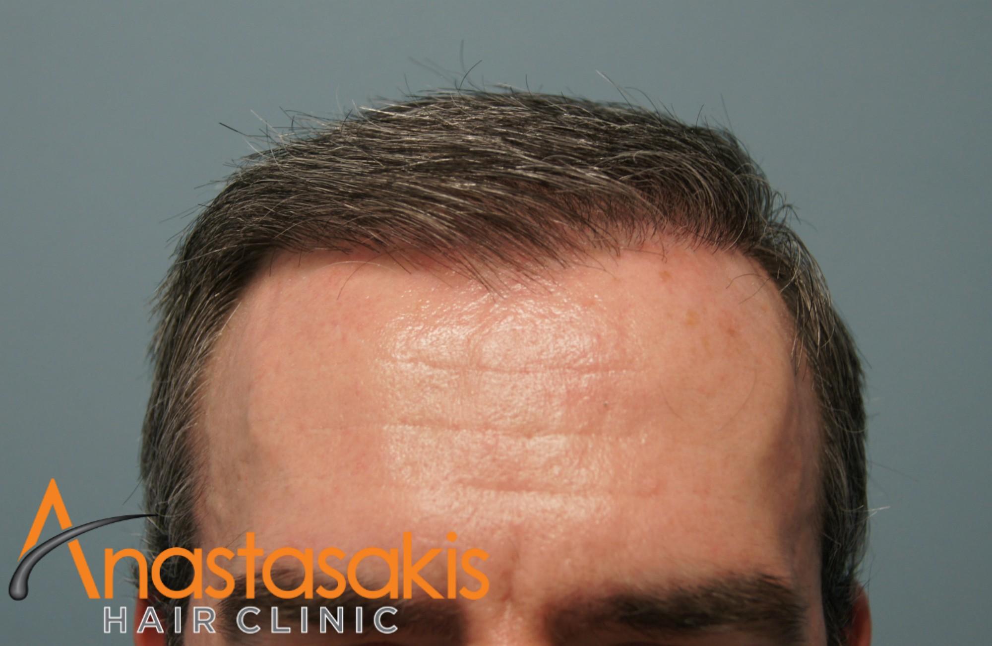 3050fus-result-anastasakis-hair-clinic-fut