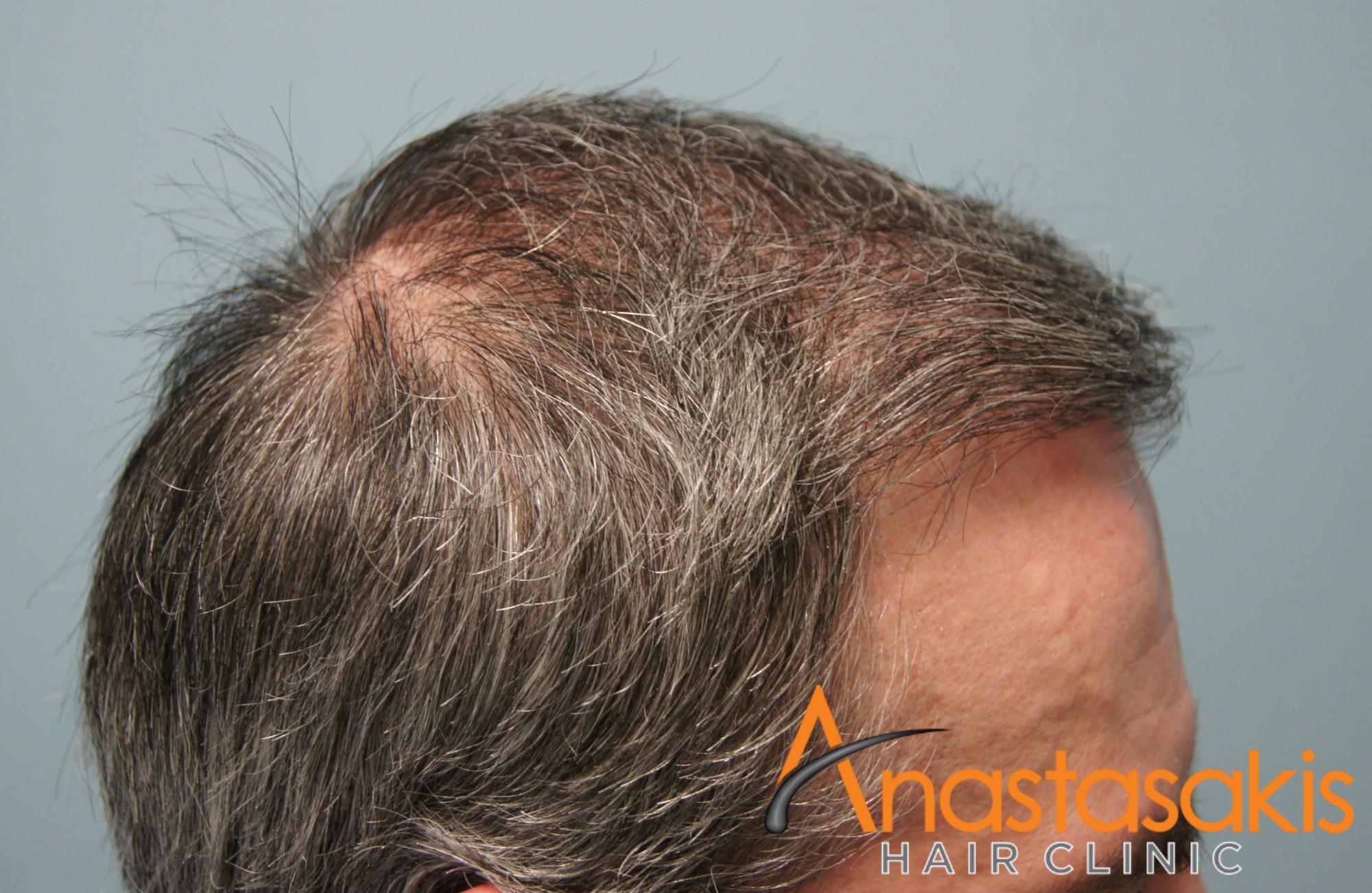 δεξι προφιλ ασθενους μετα τη μεταμοσχευση μαλλιων με 3050 fus