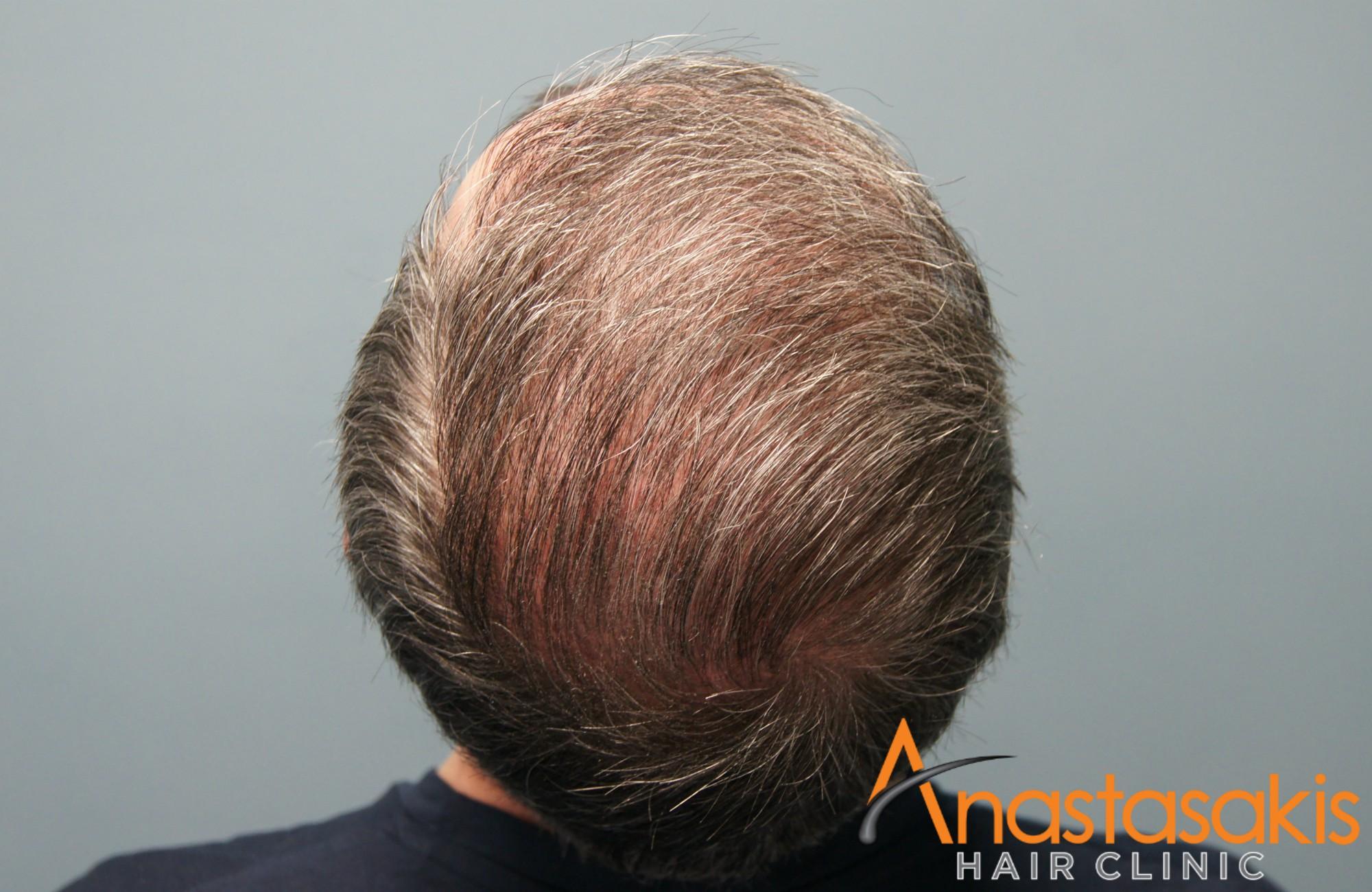 κορυφη ασθενους μετα τη μεταμοσχευση μαλλιων με 3050 fus