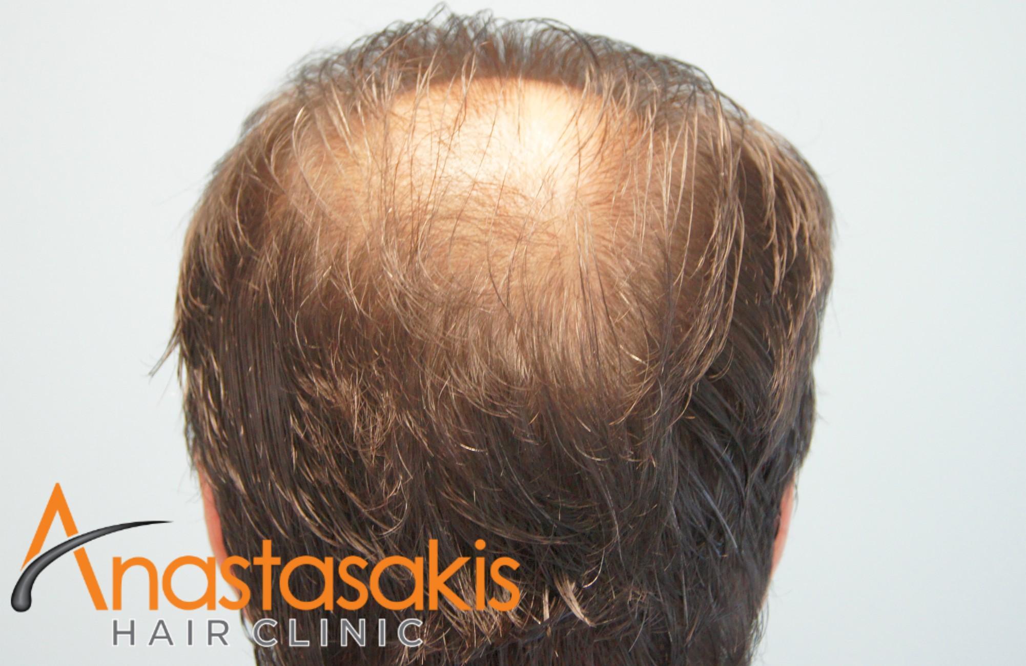 δοτρια ασθενους πριν τη μεταμοσχευση μαλλιων με 3300 fus