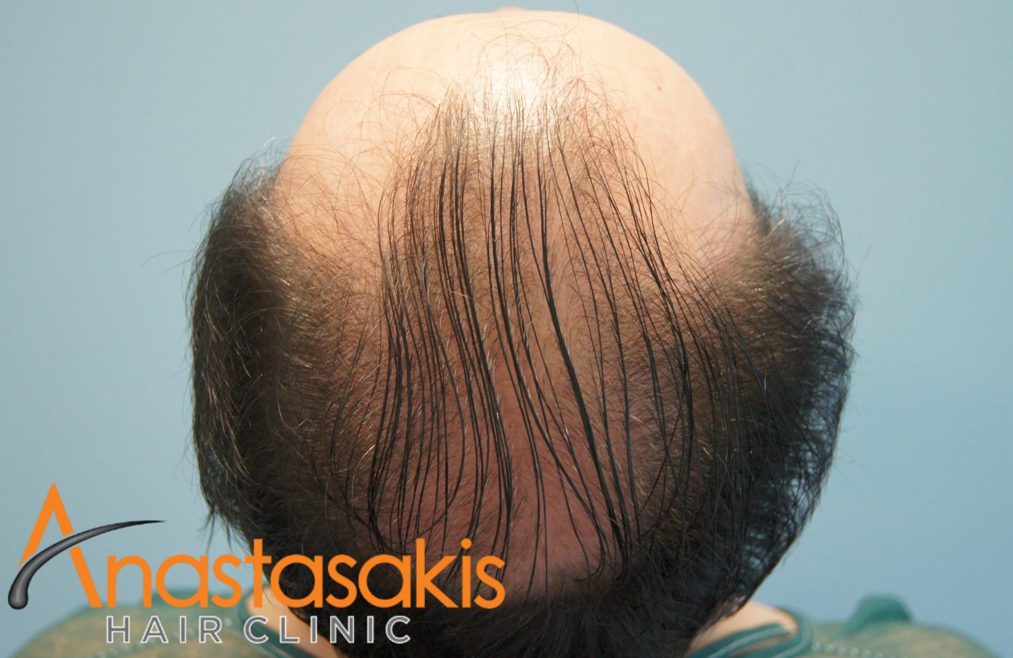 κορυφη ασθενους πριν τη μεταμοσχευση μαλλιων με 3300 fus