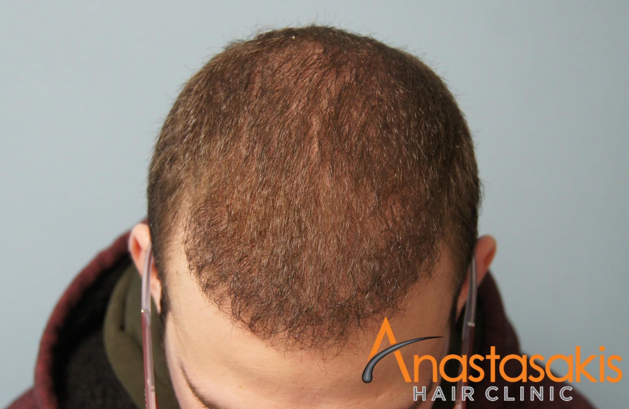 άνδρας μετά την εμφύτευση μαλλιών fut με 1500fus front