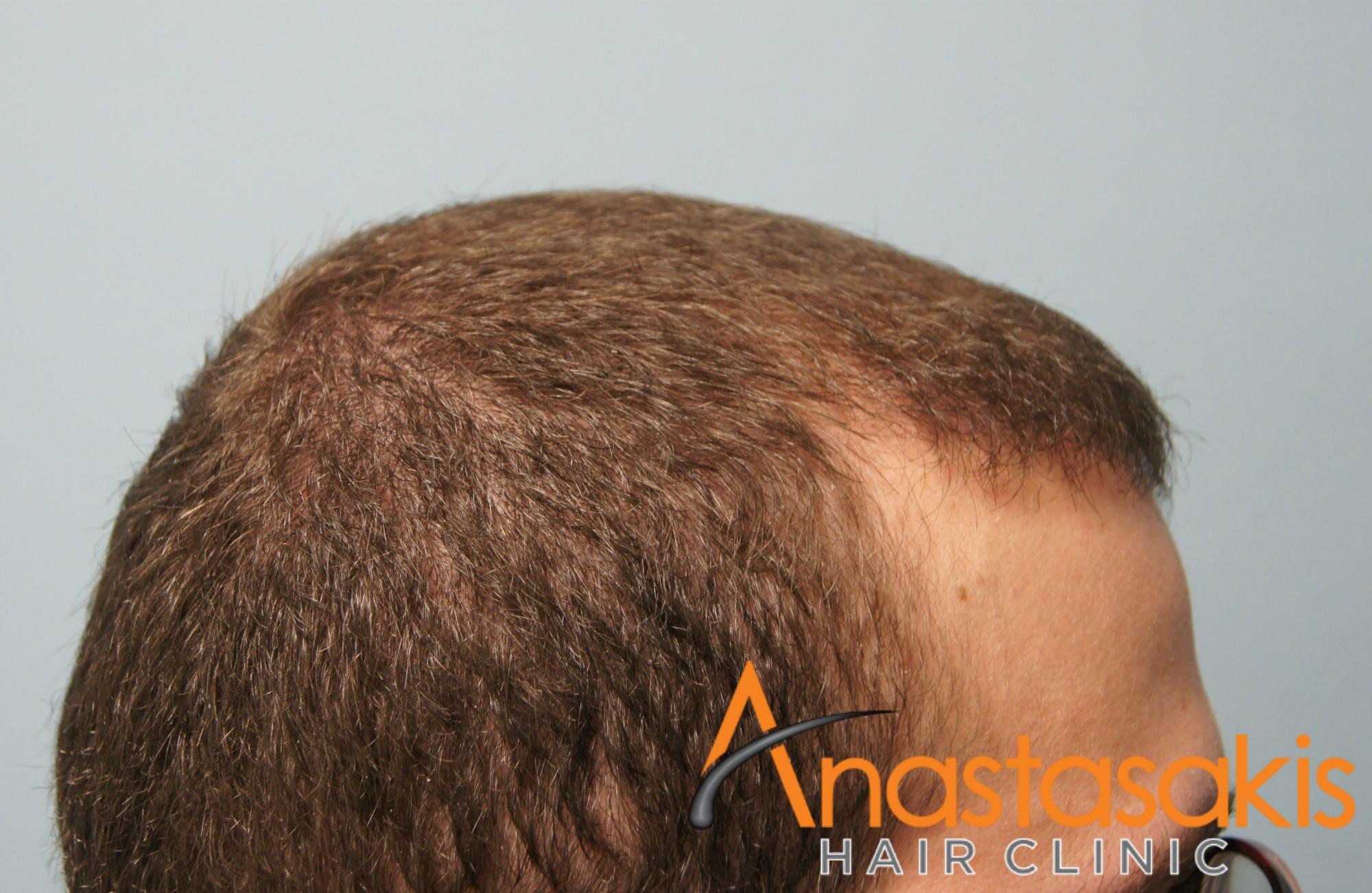άνδρας μετά την εμφύτευση μαλλιών fut με 1500fus left