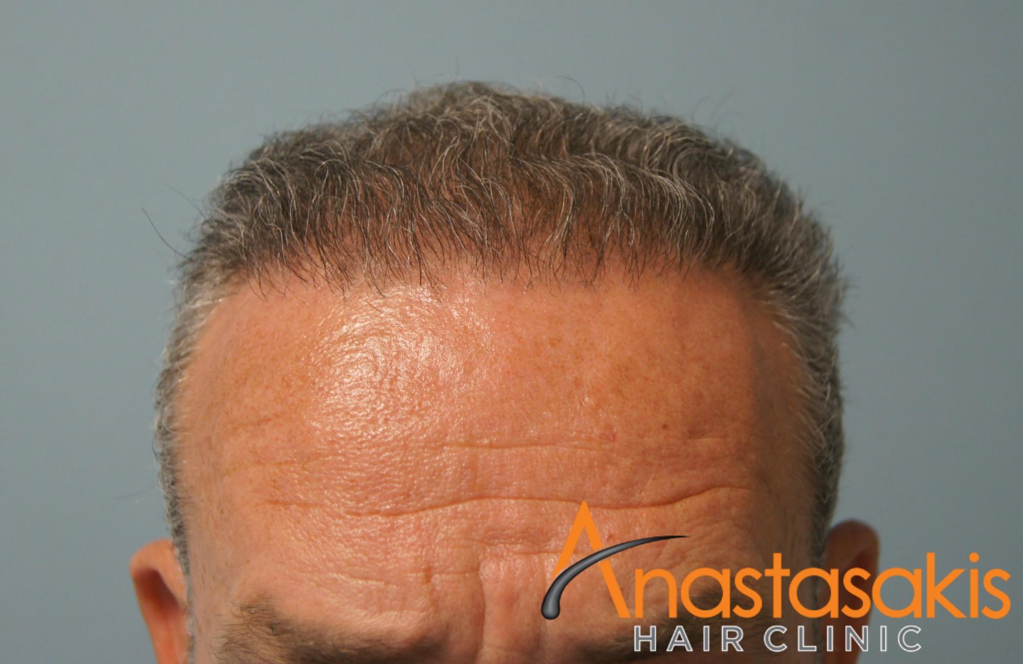 αποτέλεσμα μετά τη μεταμοσχευση μαλλιών fut με 3000fus hairline