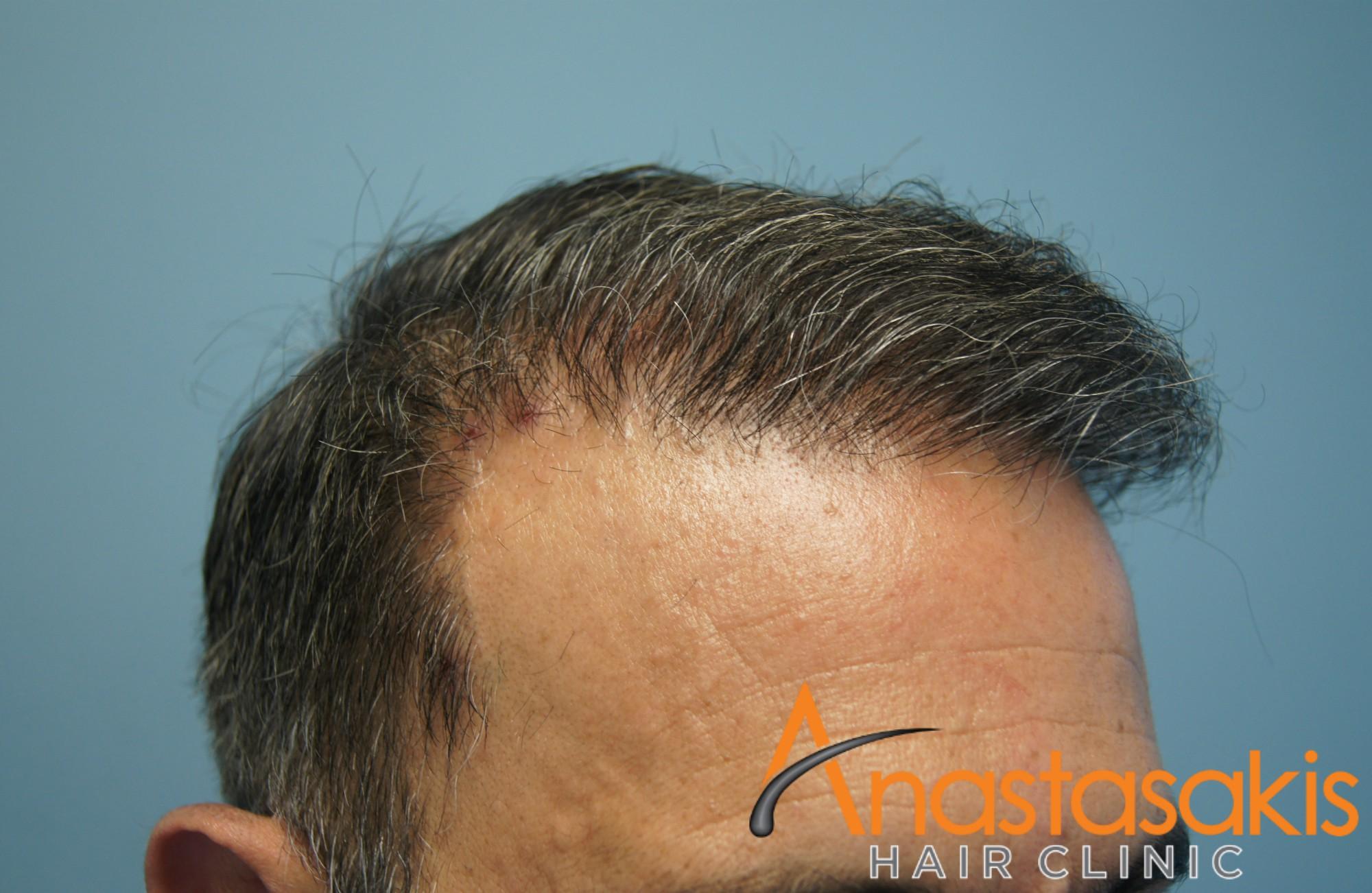 δεξι προφιλ 2 ασθενους μετα τη μεταμοσχευση μαλλιων με 3000 fus
