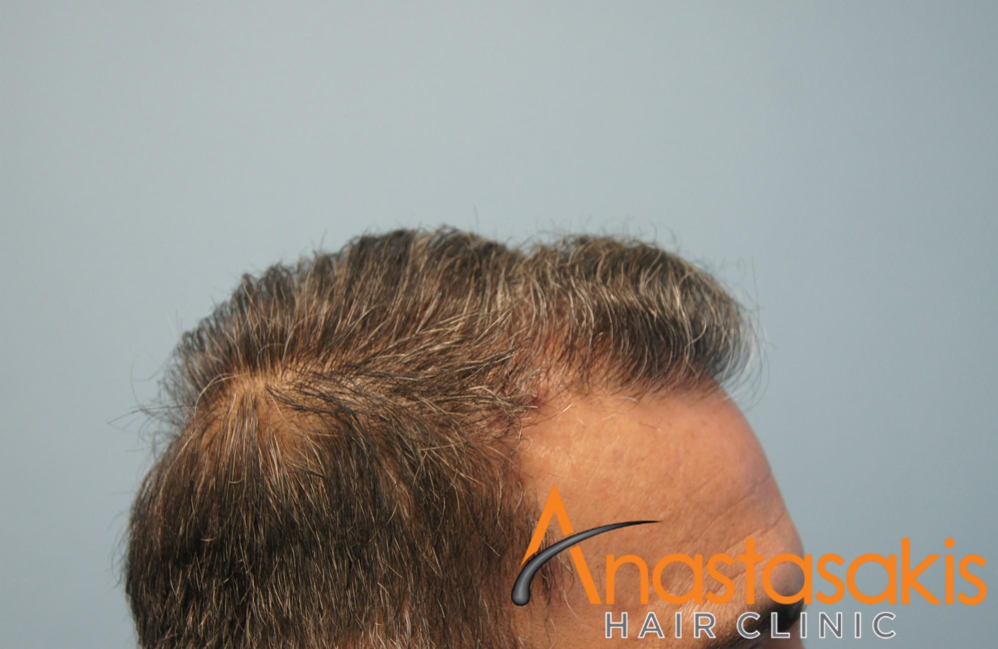 δεξι προφιλ ασθενους μετα τη μεταμοσχευση μαλλιων με 3000 fus