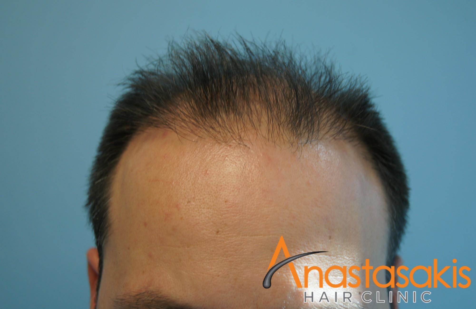 hairline βαγγελη μαρουση πριν τη μεταμοσχευση μαλλιων με 2500 fus