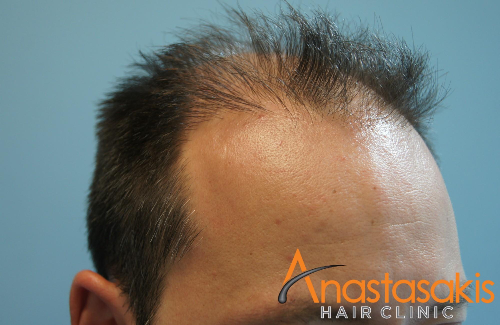 δεξι προφιλ 2 βαγγελη μαρουση πριν τη μεταμοσχευση μαλλιων με 2500 fus