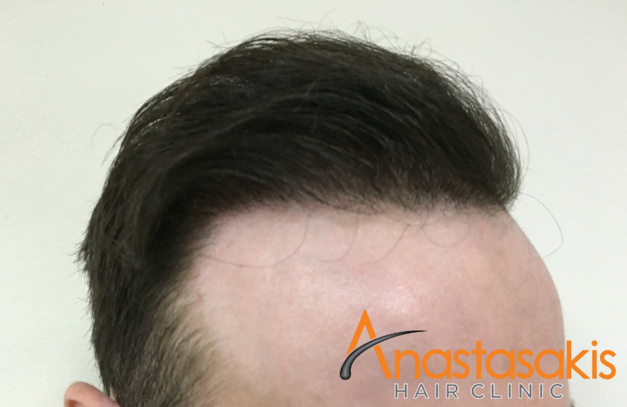 δεξι προφιλ ασθενους μετα τη μεταμοσχευση μαλλιων με 2000 fus