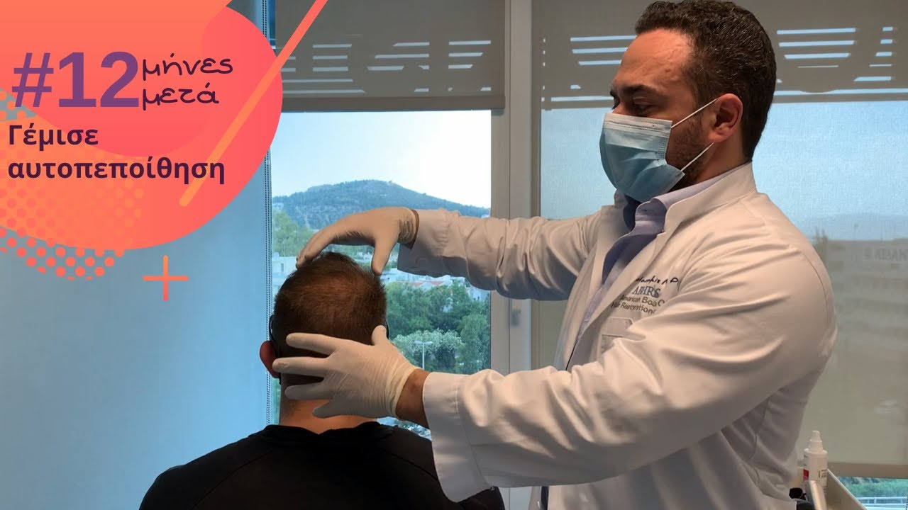 1500fus-anastasakis-hair-clinic-fue