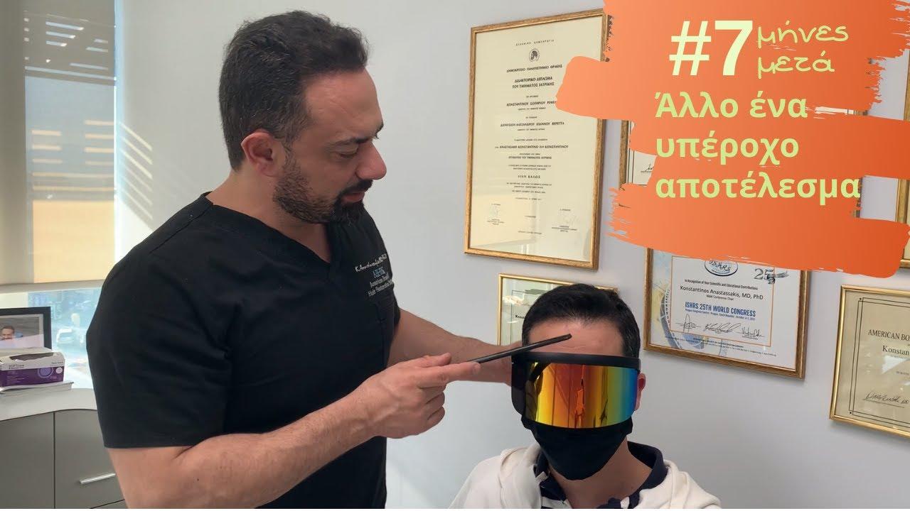 1500fus-anastasakis-hair-clinic