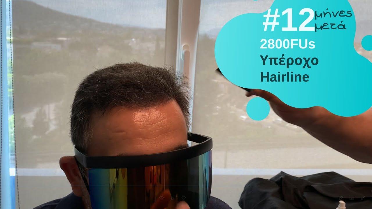 2800fus-anastasakis-hair-clinic