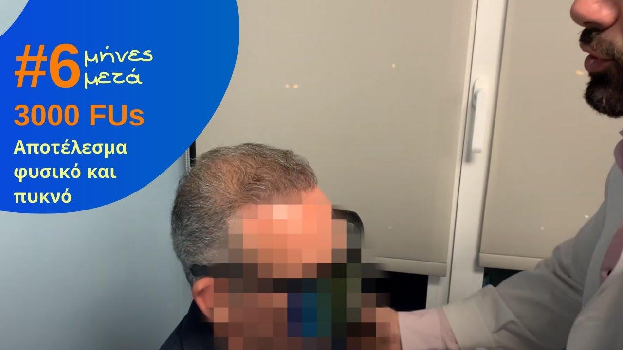 3000fus-anastasakis-hair-clinic