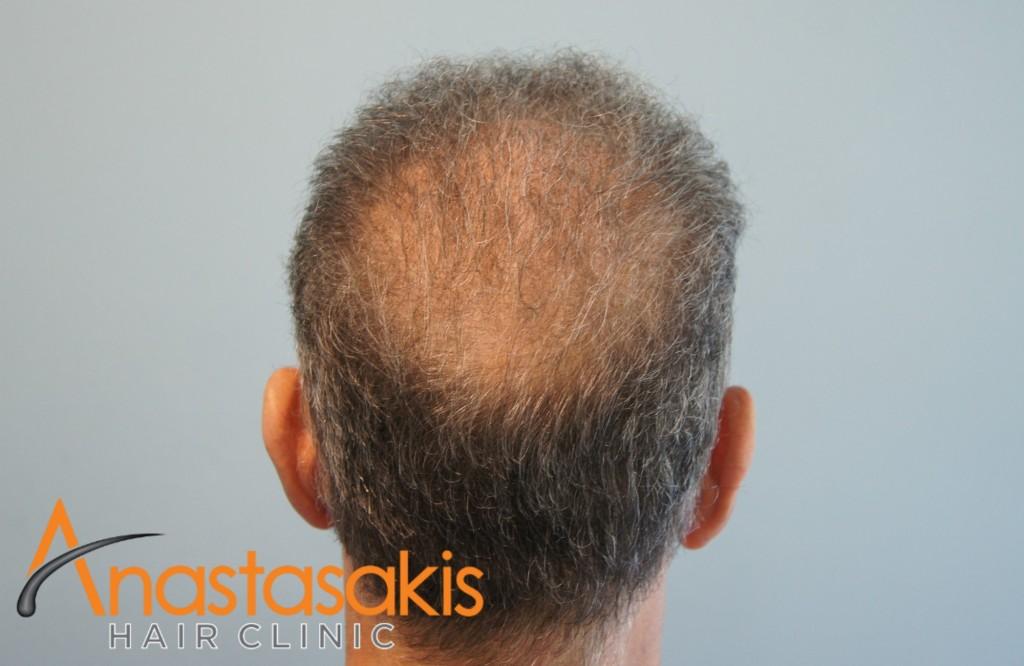 crown ασθενή μετά τη μεταμόσχευση μαλλιών με 2700 fus