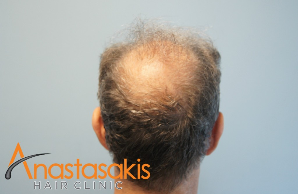crown ασθενή πριν τη μεταμόσχευση μαλλιών με 2700 fus