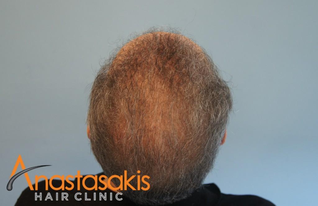 birdview ασθενή μετά τη μεταμόσχευση μαλλιών με 2700 fus