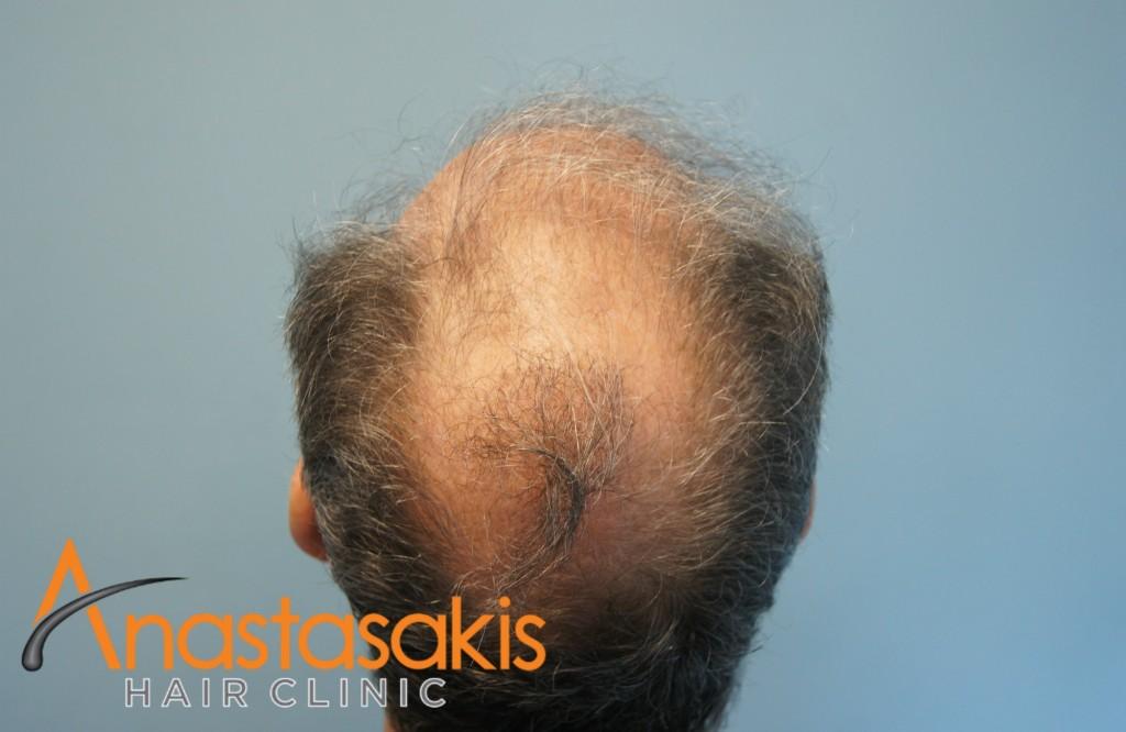birdview ασθενή πριν τη μεταμόσχευση μαλλιών με 2700 fus