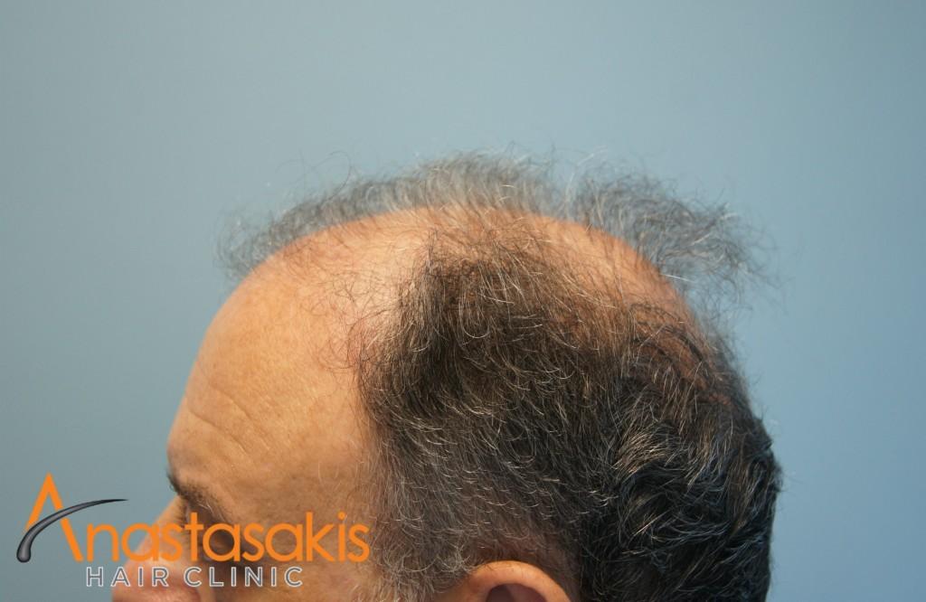 δεξί προφιλ ασθενή πριν τη μεταμόσχευση μαλλιών με 2700 fus