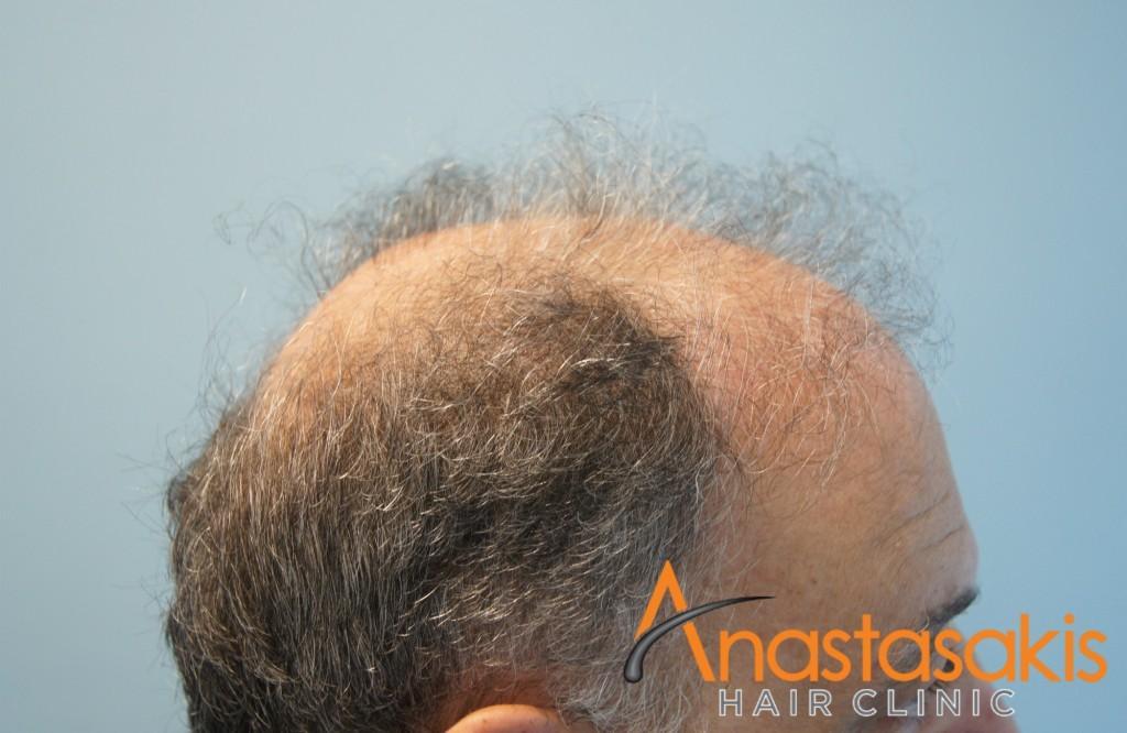 αριστερό προφιλ ασθενή πριν τη μεταμόσχευση μαλλιών με 2700 fus
