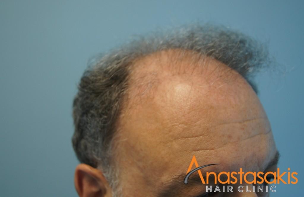 αριστερό προφιλ 2 ασθενή πριν τη μεταμόσχευση μαλλιών με 2700 fus