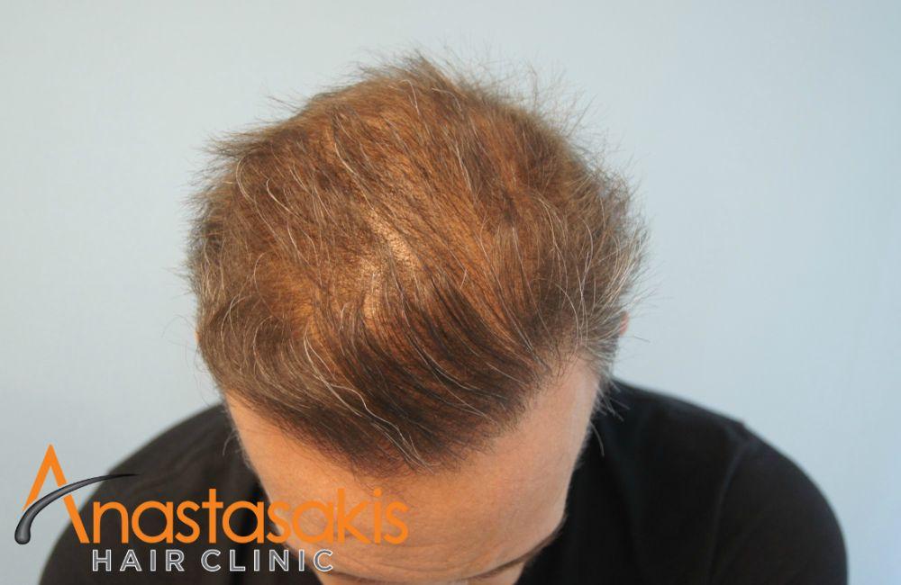 μπροστά ασθενή μετά τη μεταμόσχευση μαλλιών με 3100 fus