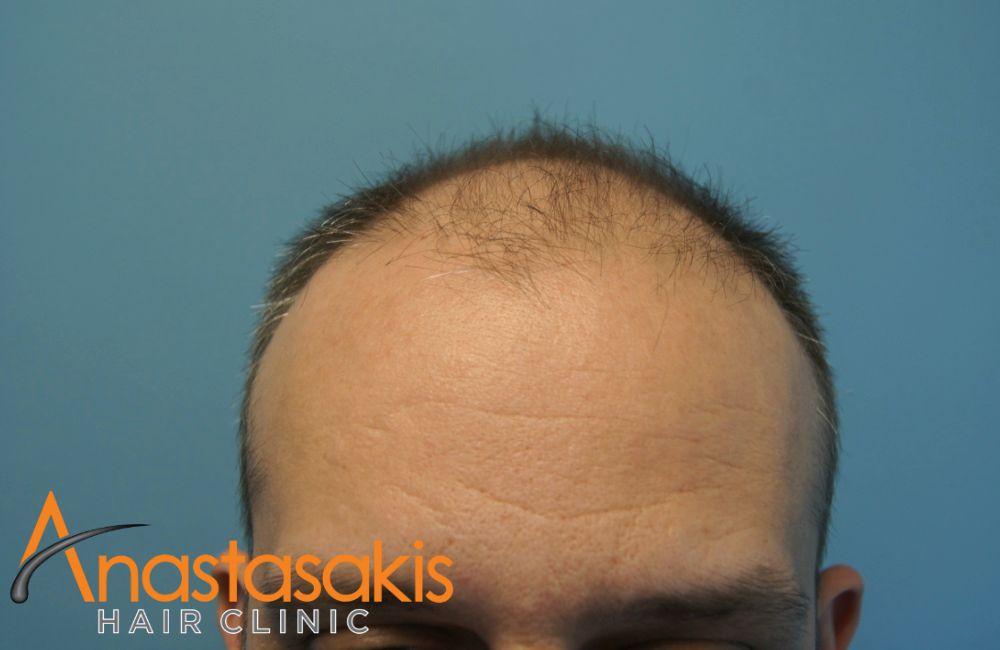 hairline ασθενή πριν τη μεταμόσχευση μαλλιών με 3100 fus