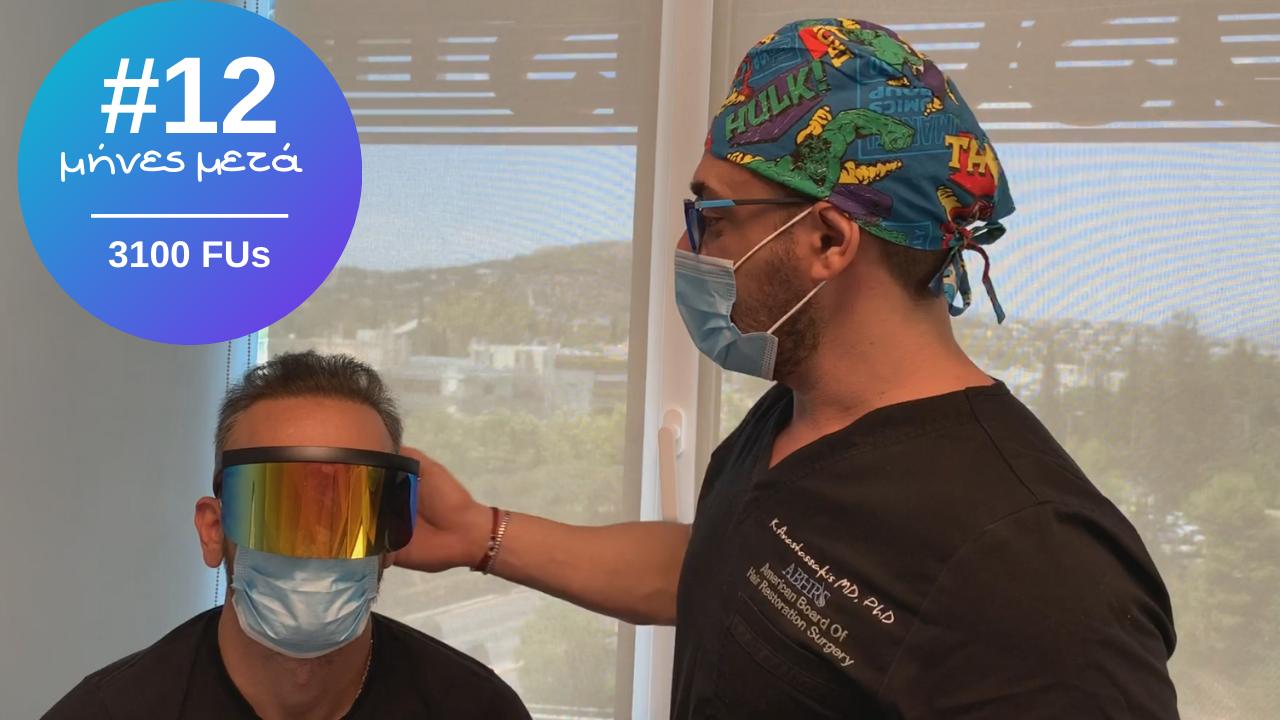 βιντεο εντυπωσιακο αποτέλεσμα μεταμοσχευσης μαλλιών 3100 τριχοθυλάκιο combo