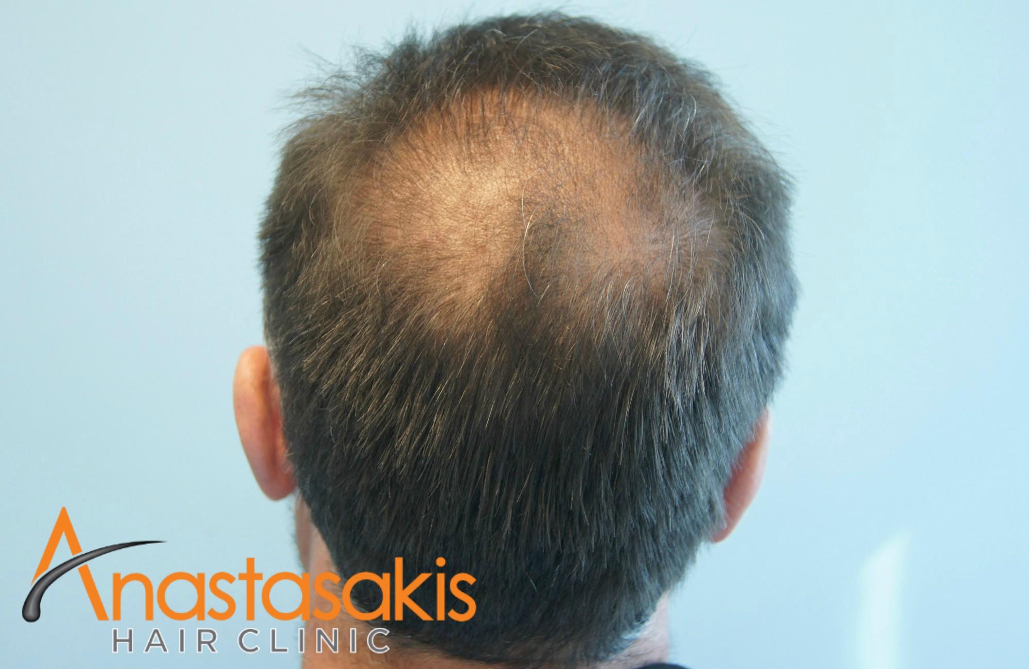 crown ασθενη μετά την επέμβαση μαλλιών με 3110 fus