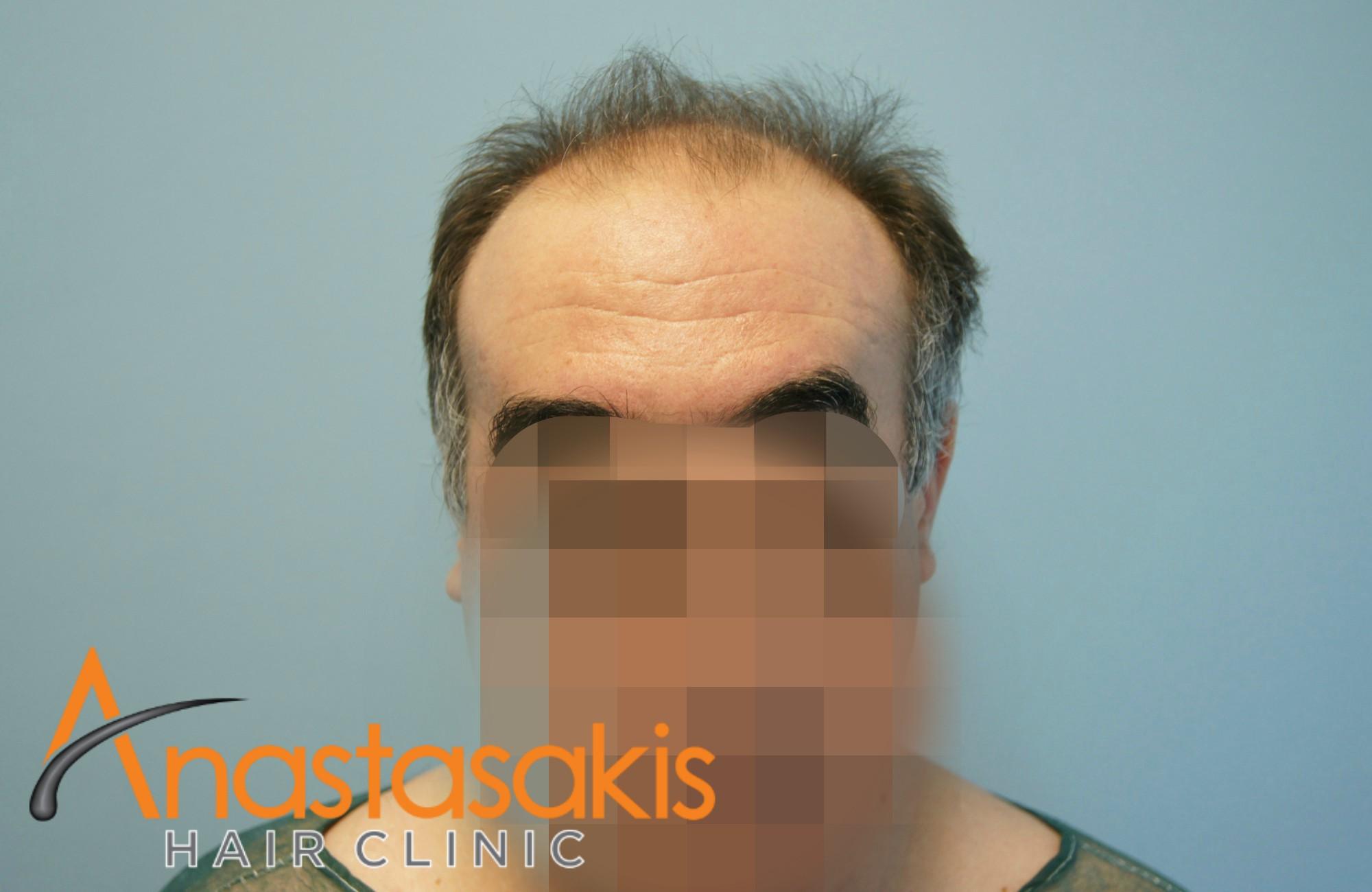 ανφάς ασθενη πριν την επέμβαση μαλλιών με 3110 fus