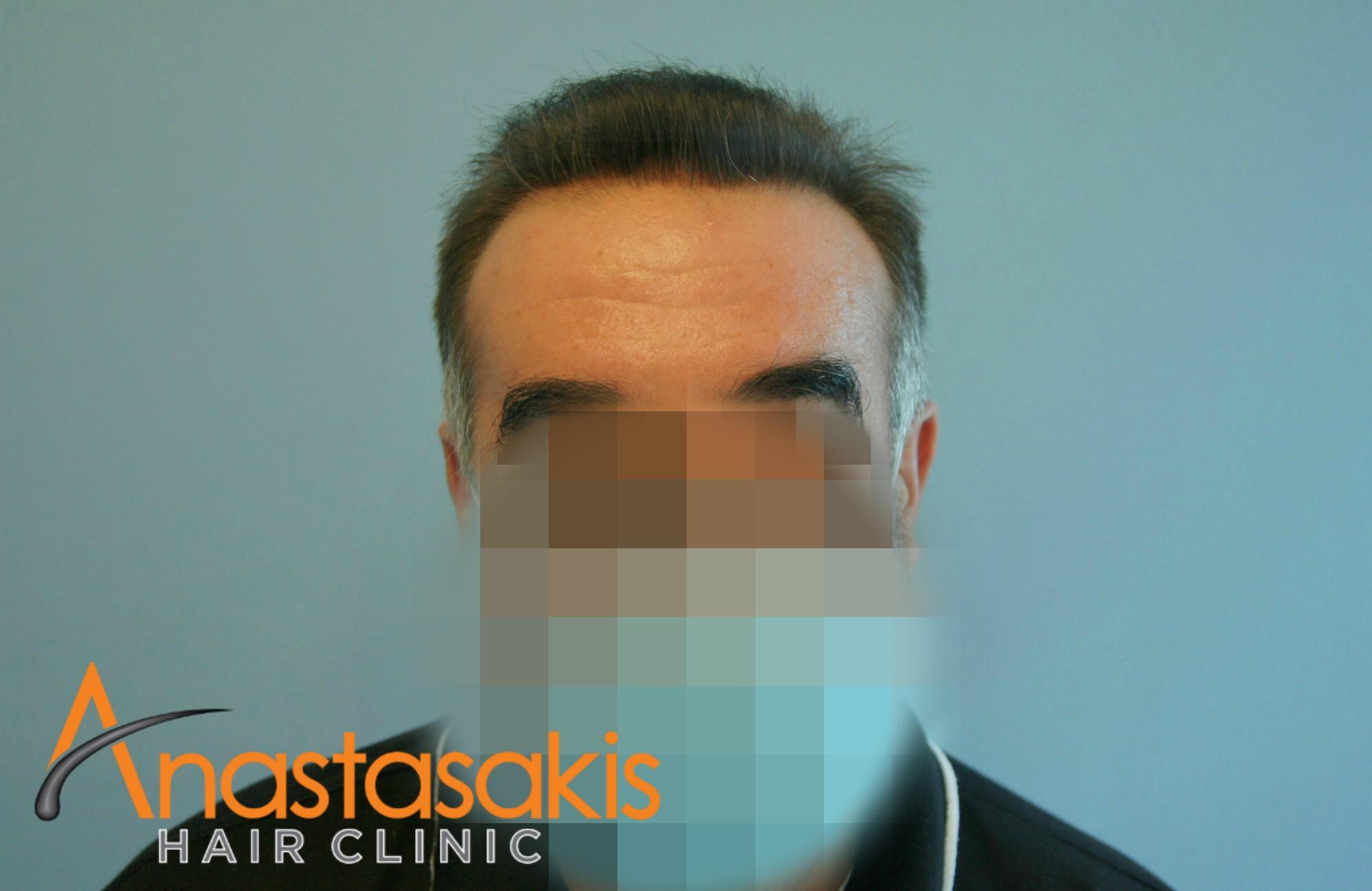 ανφάς ασθενη μετά την επέμβαση μαλλιών με 3110 fus