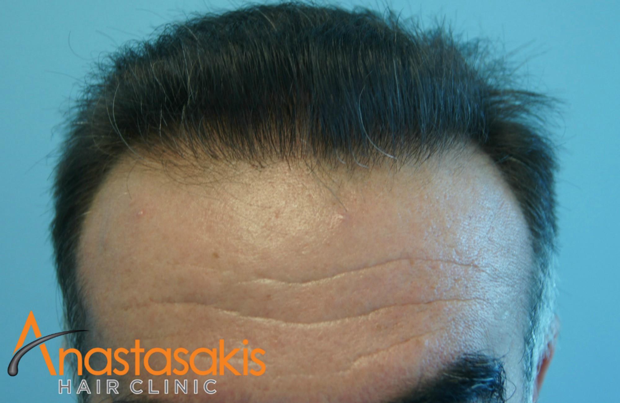 hairline ασθενη μετά την επέμβαση μαλλιών με 3110 fus