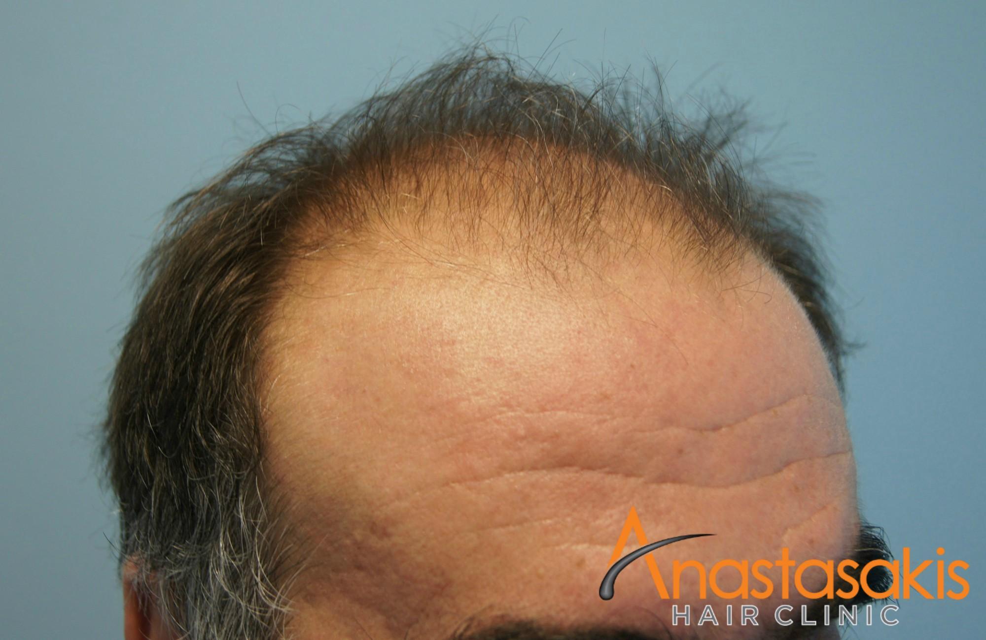αριστερό προφίλ 2 ασθενη πριν την επέμβαση μαλλιών με 3110 fus