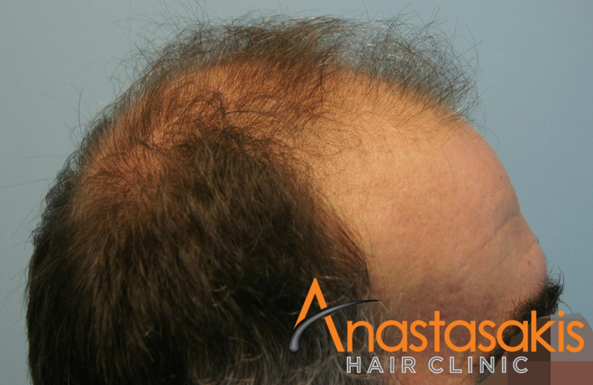 αριστερό προφίλ ασθενη πριν την επέμβαση μαλλιών με 3110 fus