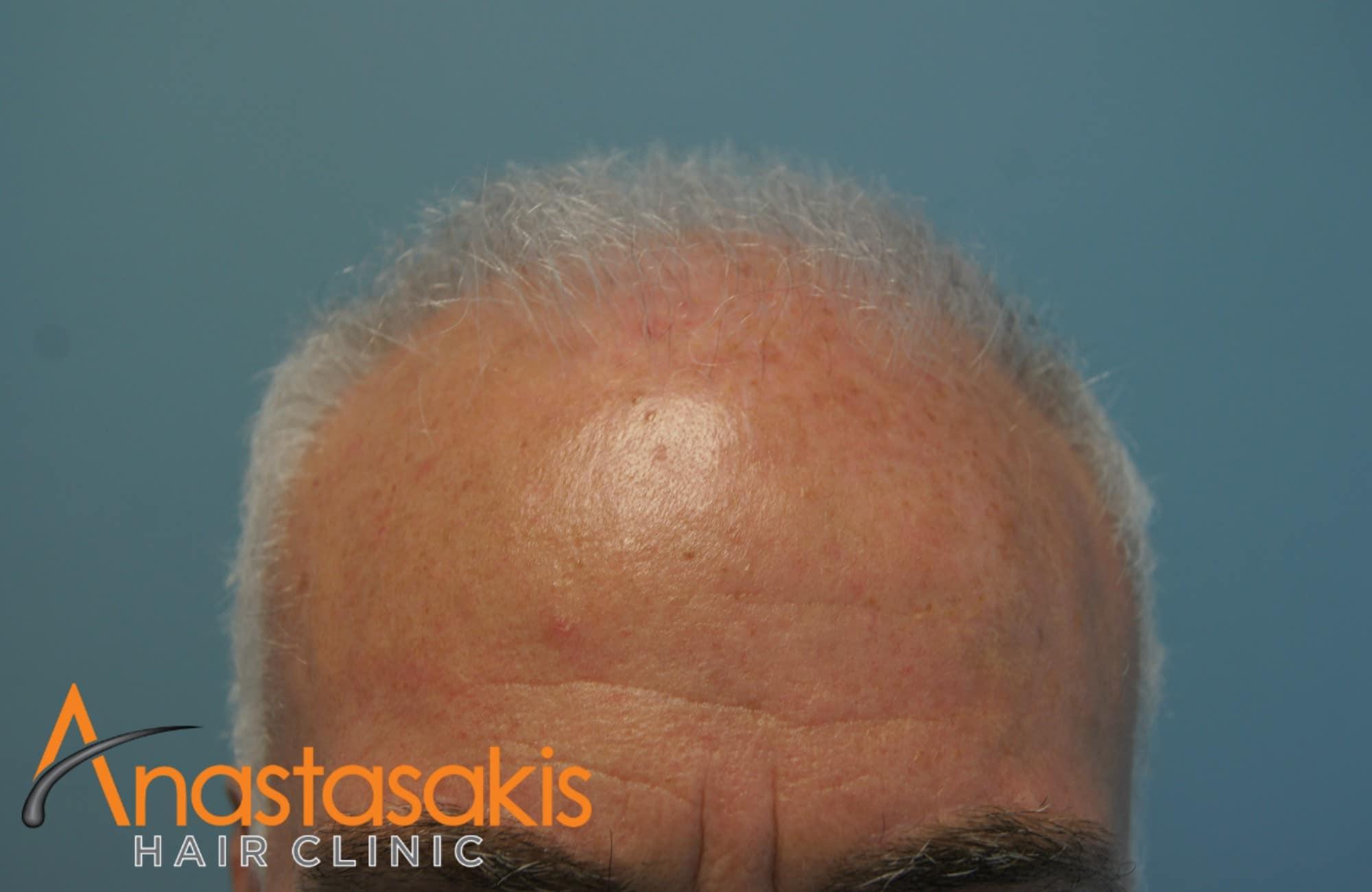 hairline ασθενή πριν τη εμφύτευση μαλλιών με 3500 fus