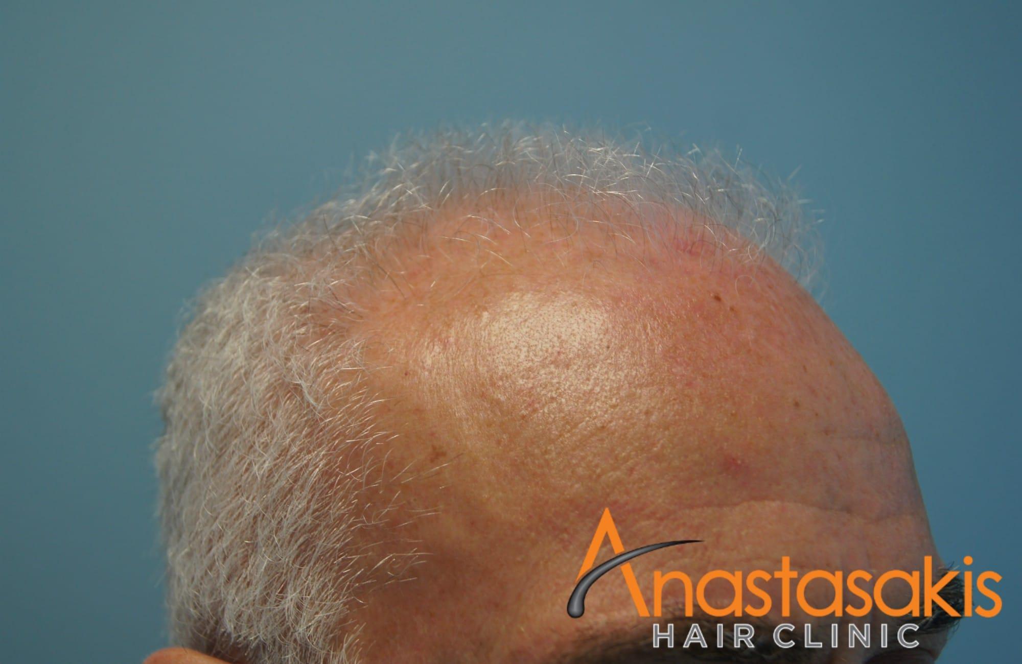 αριστερό προφίλ 2 ασθενη πριν την εμφύτευση μαλλιών με 3500 fus