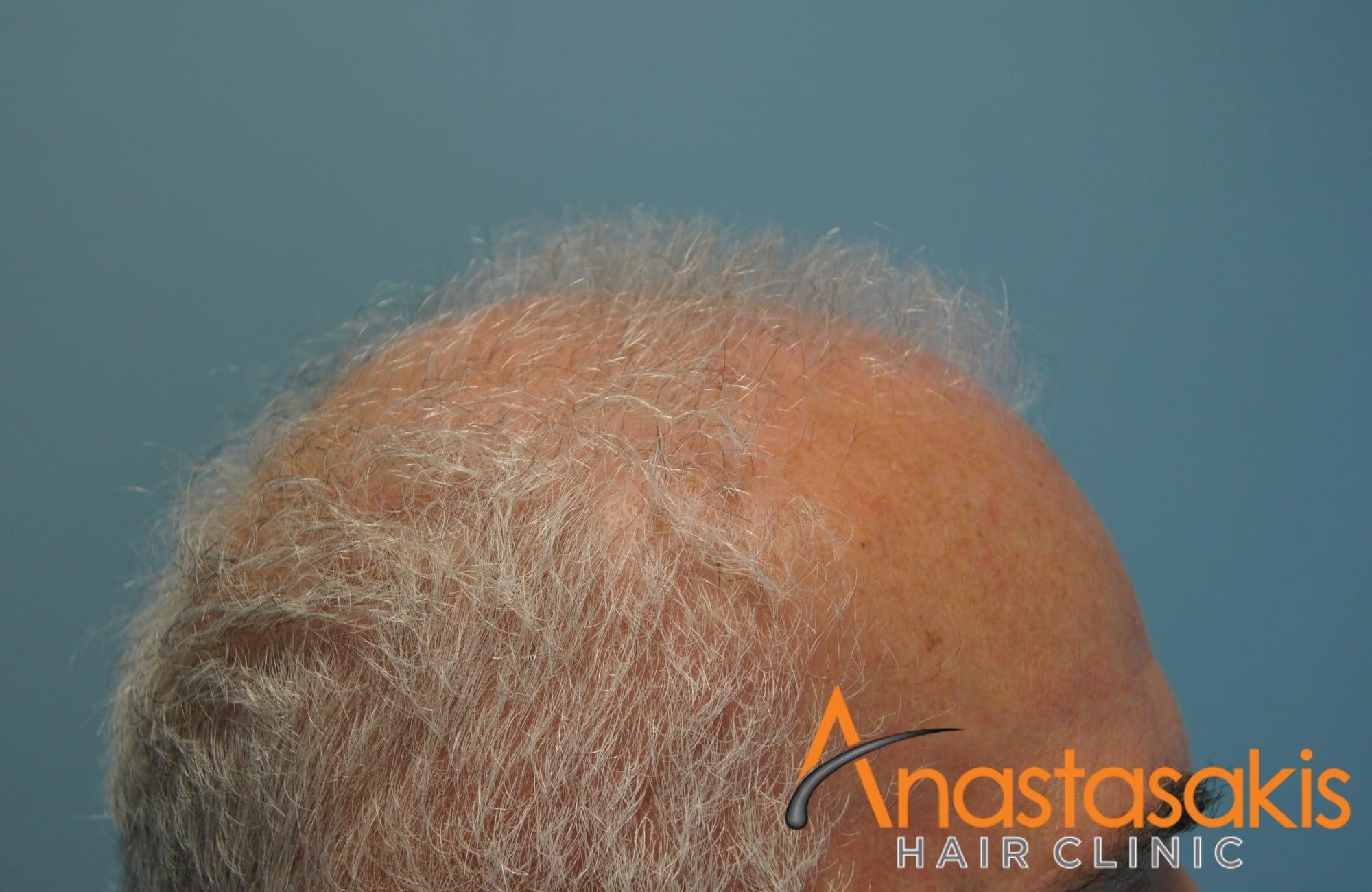 αριστερό προφίλ ασθενη πριν την εμφύτευση μαλλιών με 3500 fus