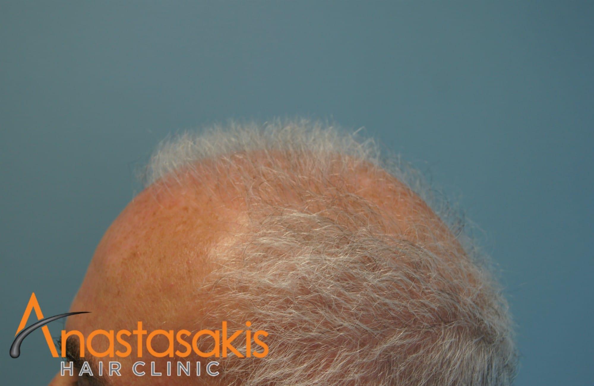 δεξί προφίλ ασθενη πριν την εμφύτευση μαλλιών με 3500 fus