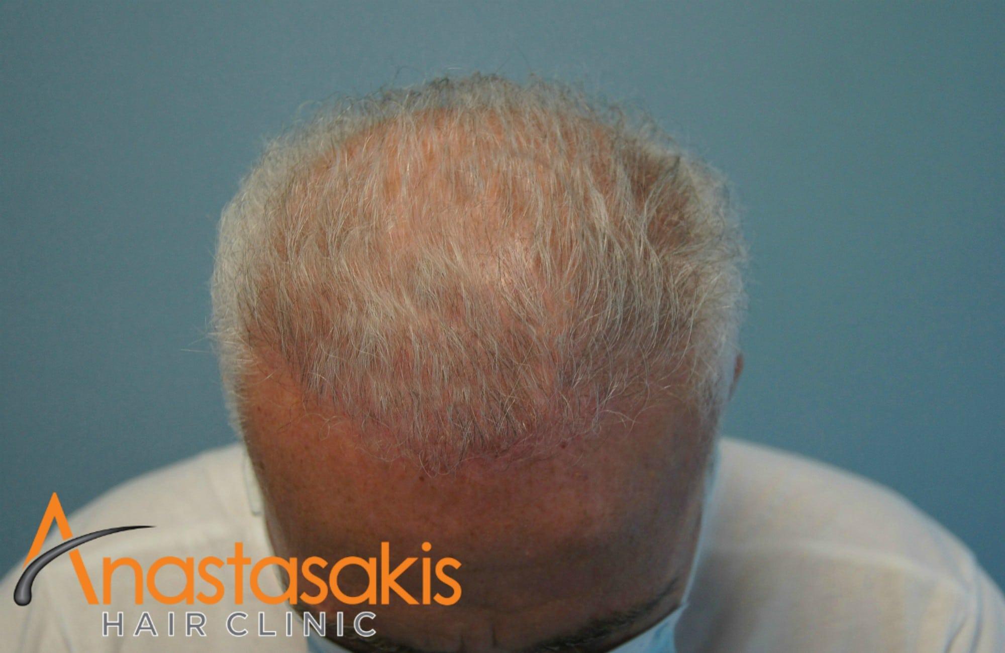 εμπρόσθιο προφίλ ασθενή μετά τη εμφύτευση μαλλιών με 3500 fus
