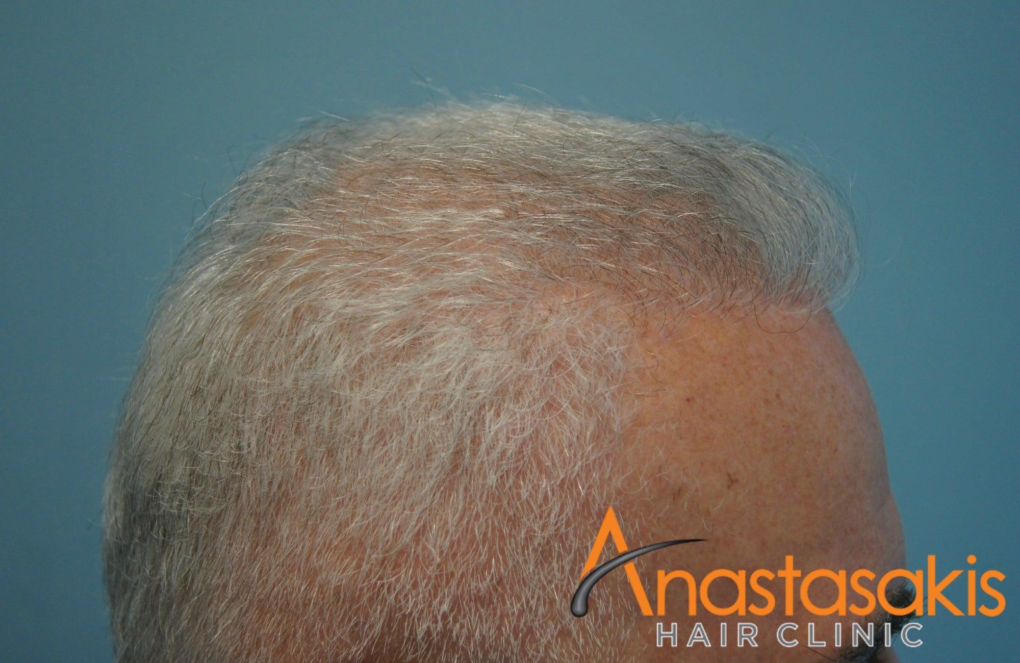 αριστερό προφίλ ασθενη μετά την εμφύτευση μαλλιών με 3500 fus