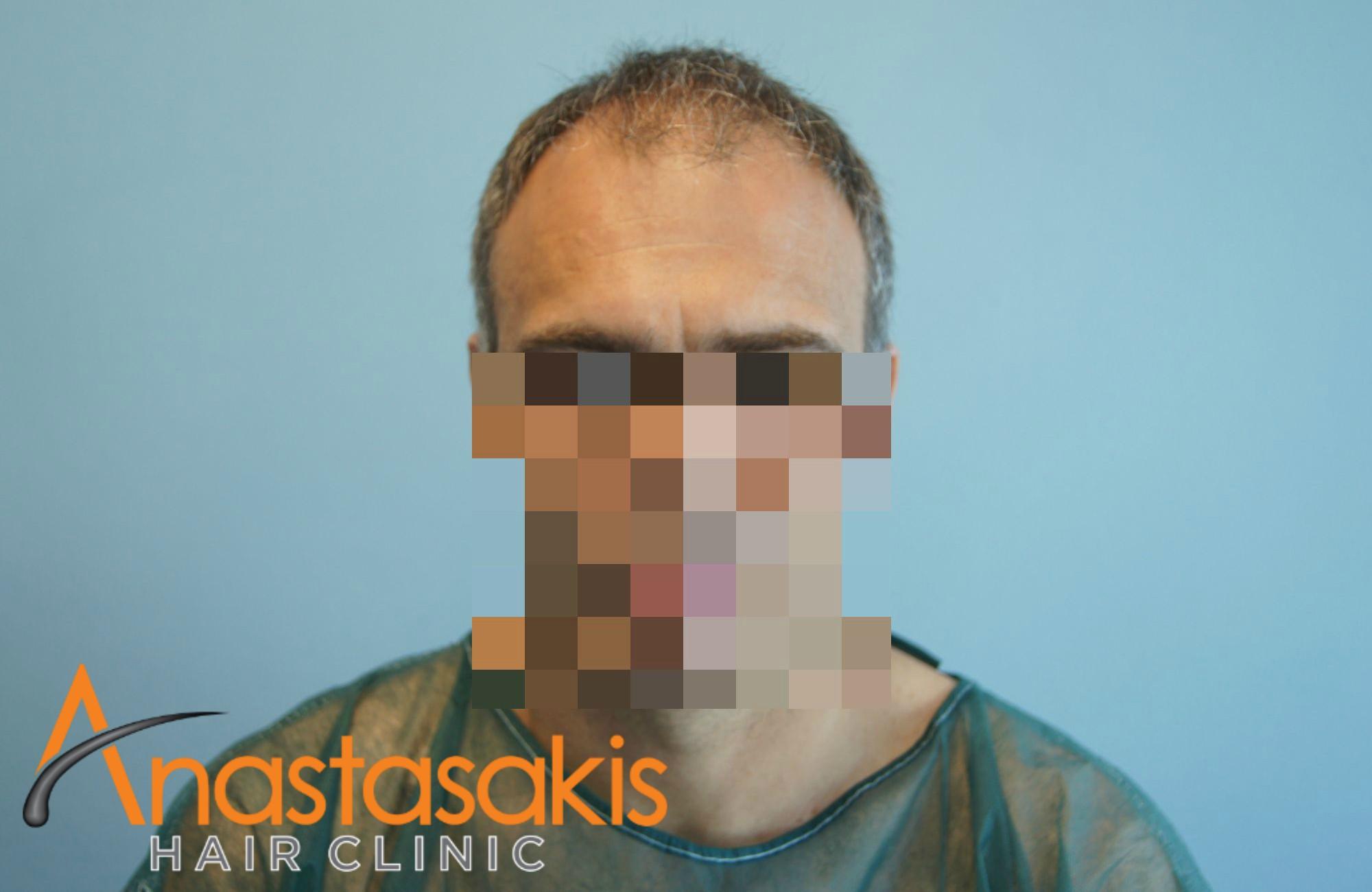 ανφάς ασθενους πριν την εμφύτευση μαλλιών με 3500 fus