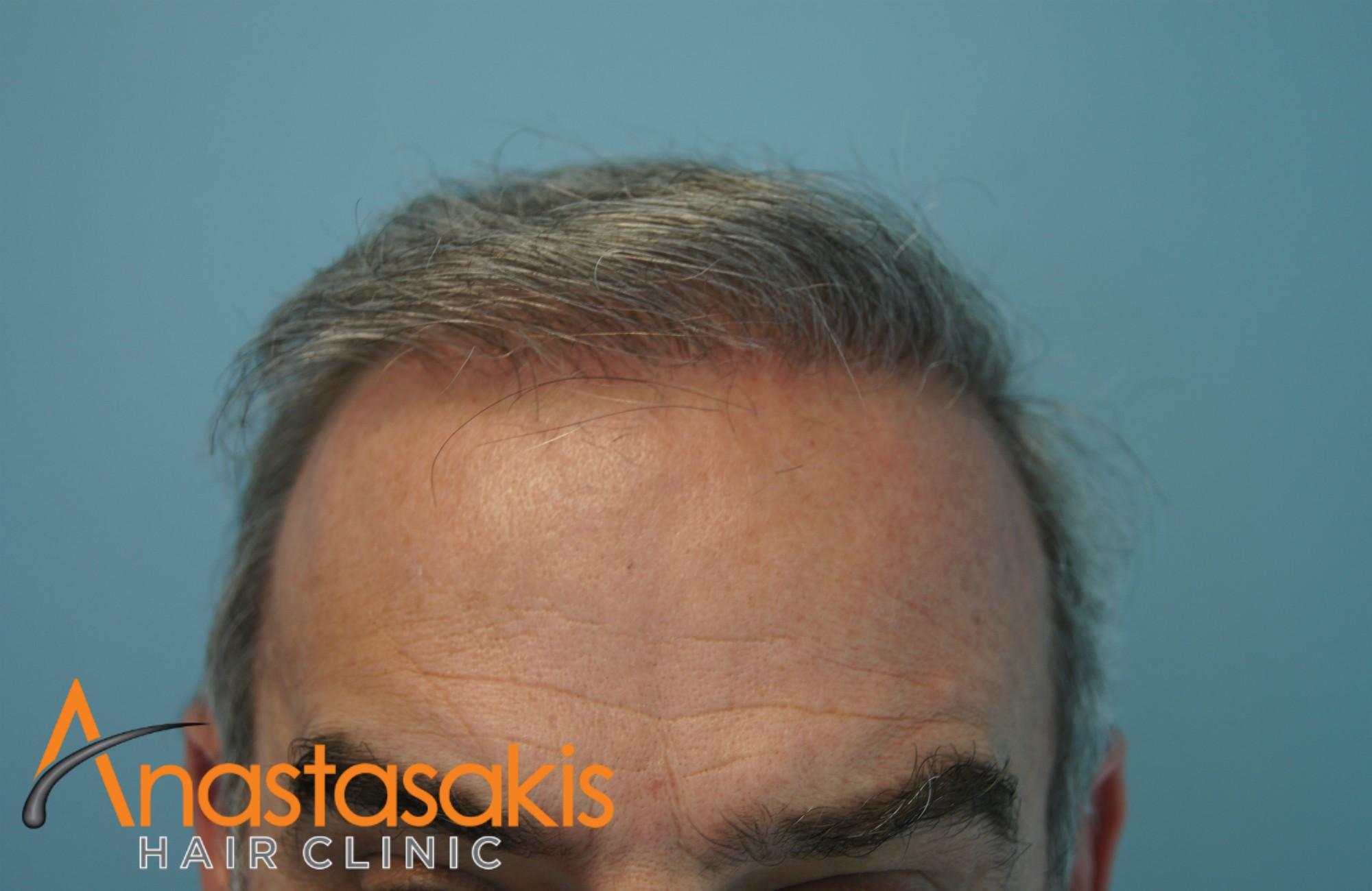 hairline ασθενούς μετά την combo επέμβαση με 5400 fus