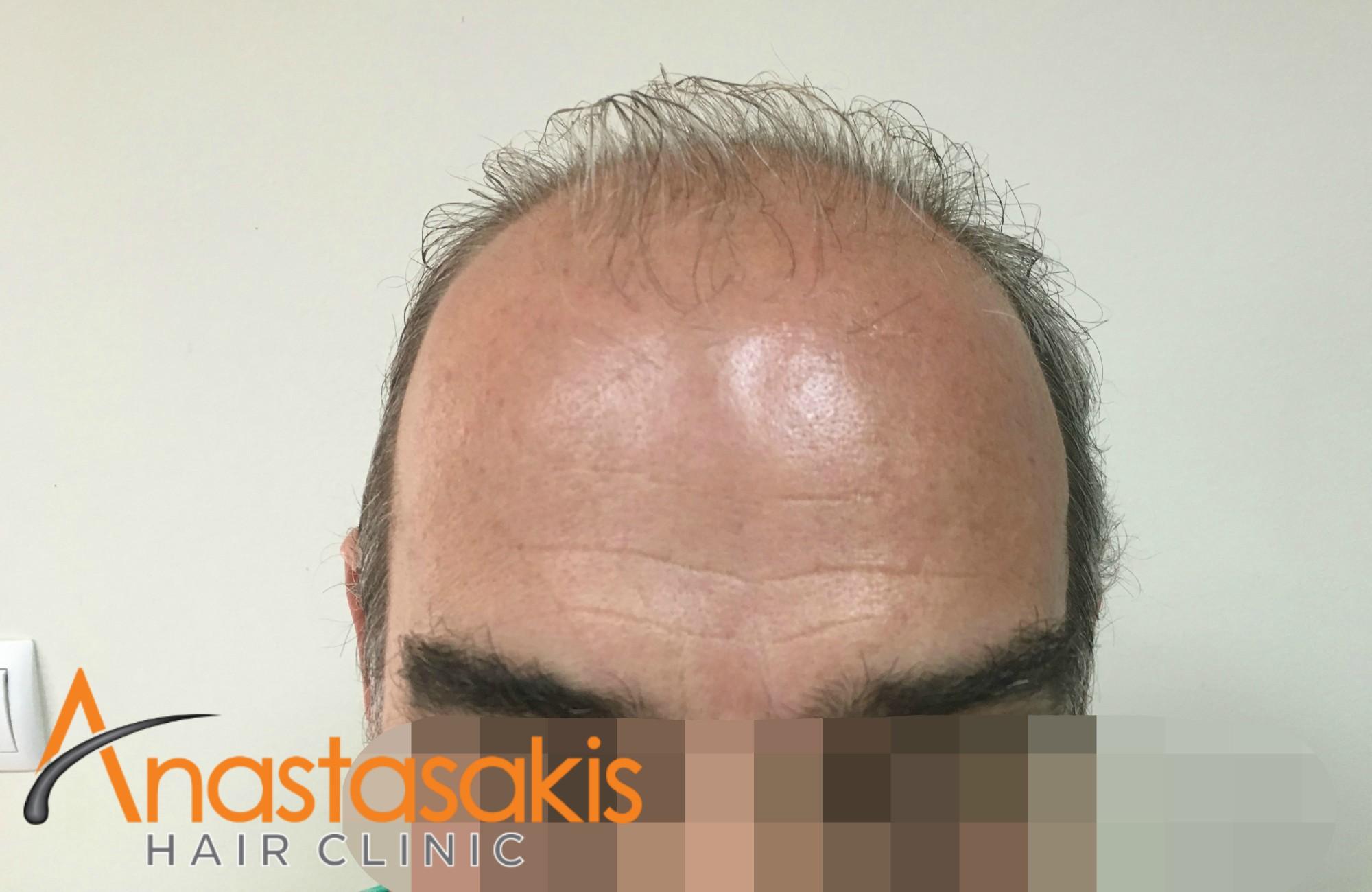 hairline ασθενούς πριν την combo επέμβαση με 5400 fus
