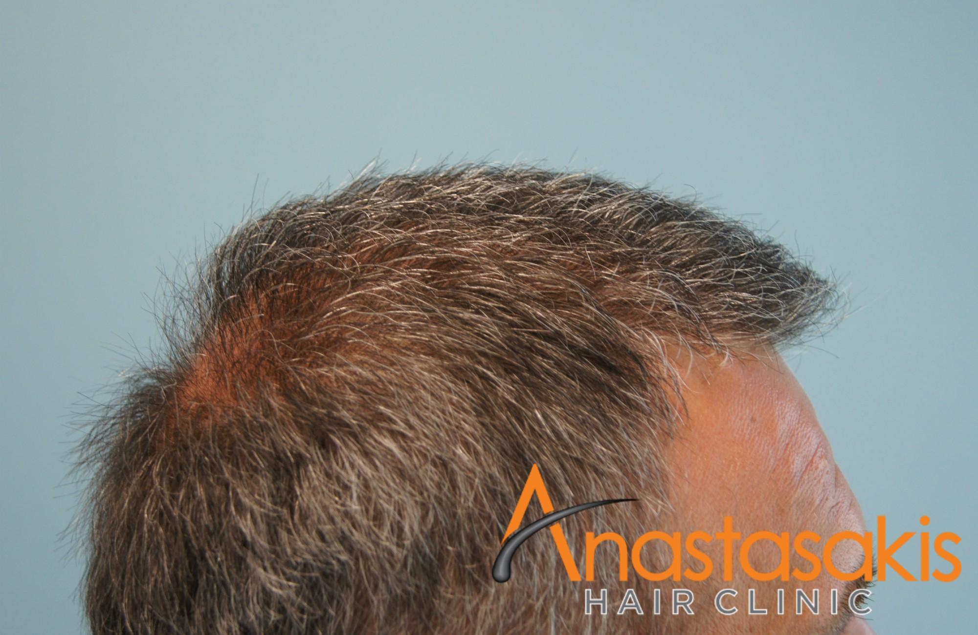 δεξί προφίλ ασθενους μετά την εμφύτευση μαλλιών με 3500 fus