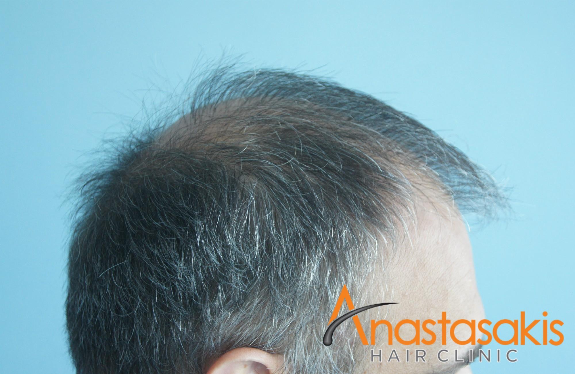αριστερό προφίλ ασθενους πριν την εμφύτευση μαλλιών με 3500 fus