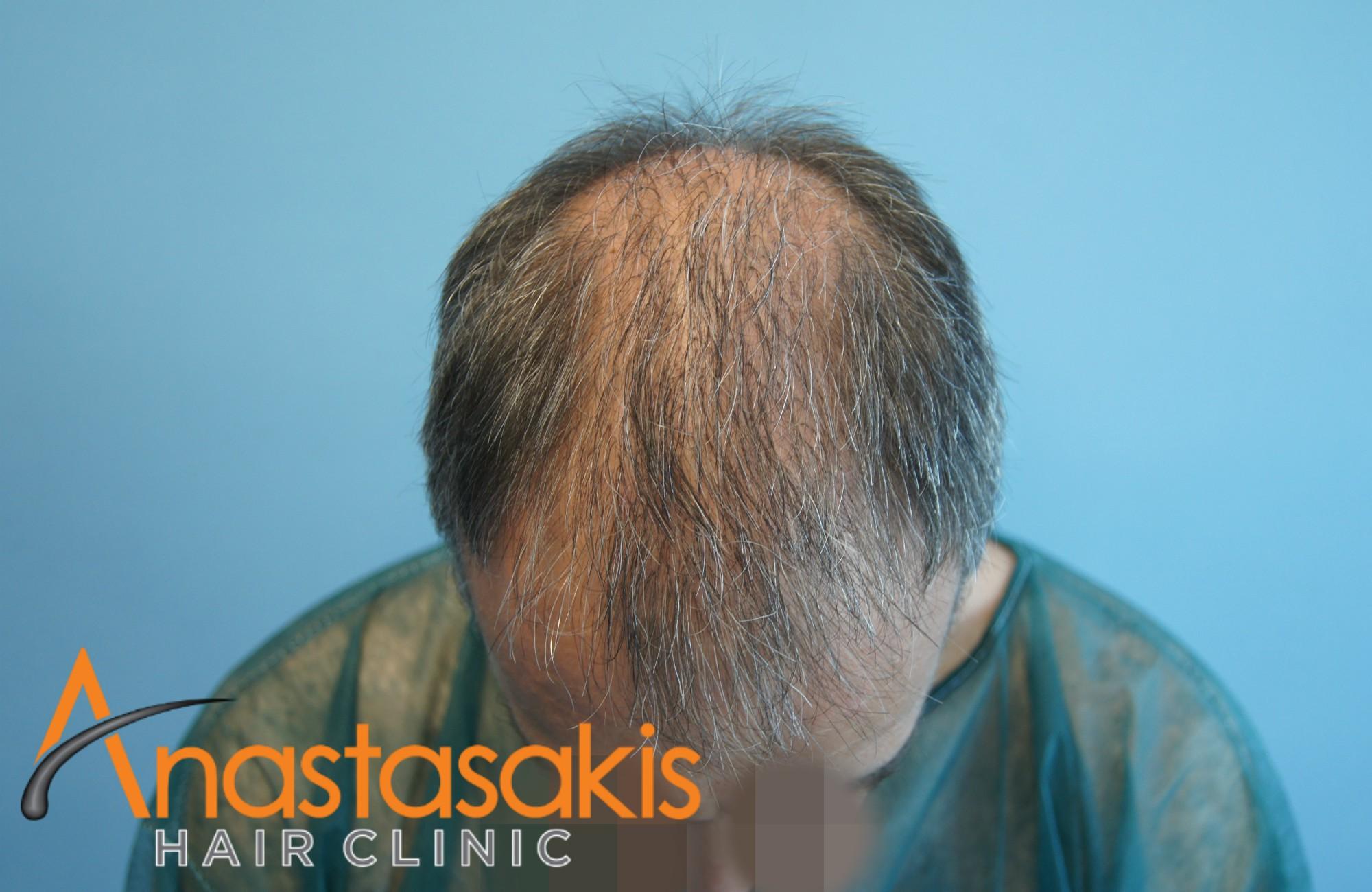 προσθια περιοχη ασθενους πριν την εμφύτευση μαλλιων με 3500 fus