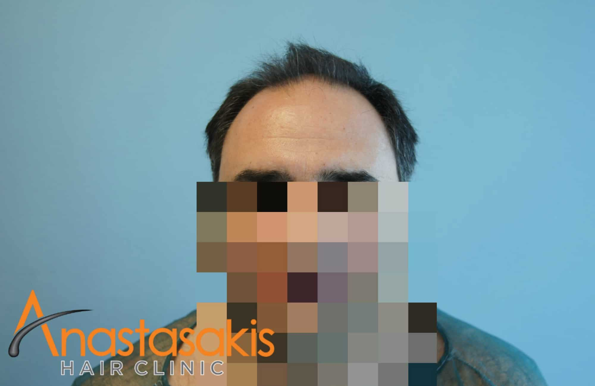 3000 fus anastasakis hair clinic result 12 months