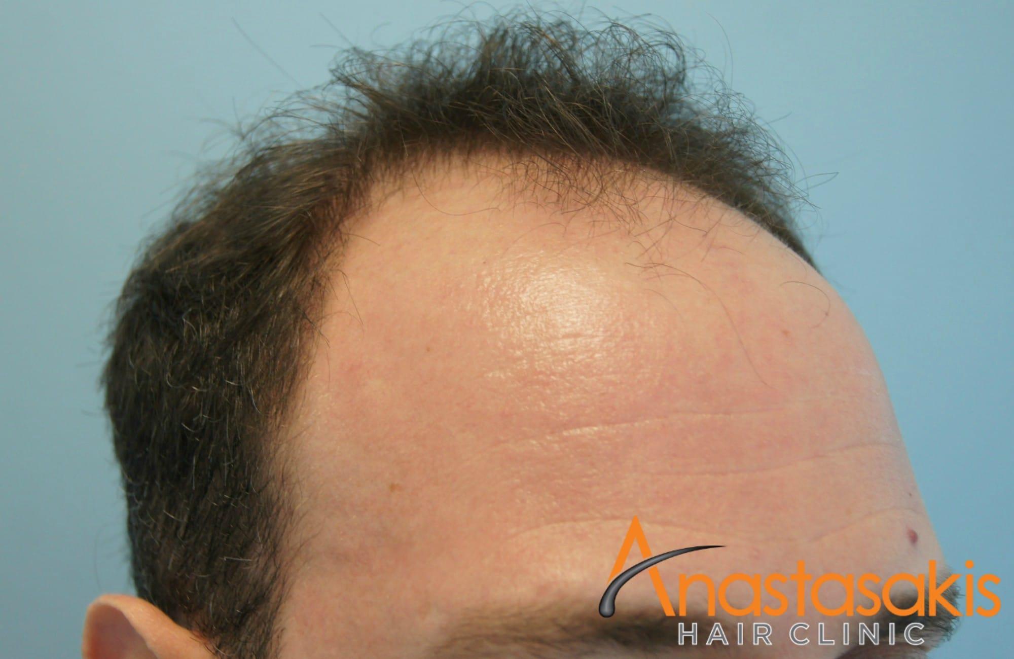 αριστερο προφιλ 2 ασθενους πριν τη μεταμοσχευση μαλλιων με 3000 fus