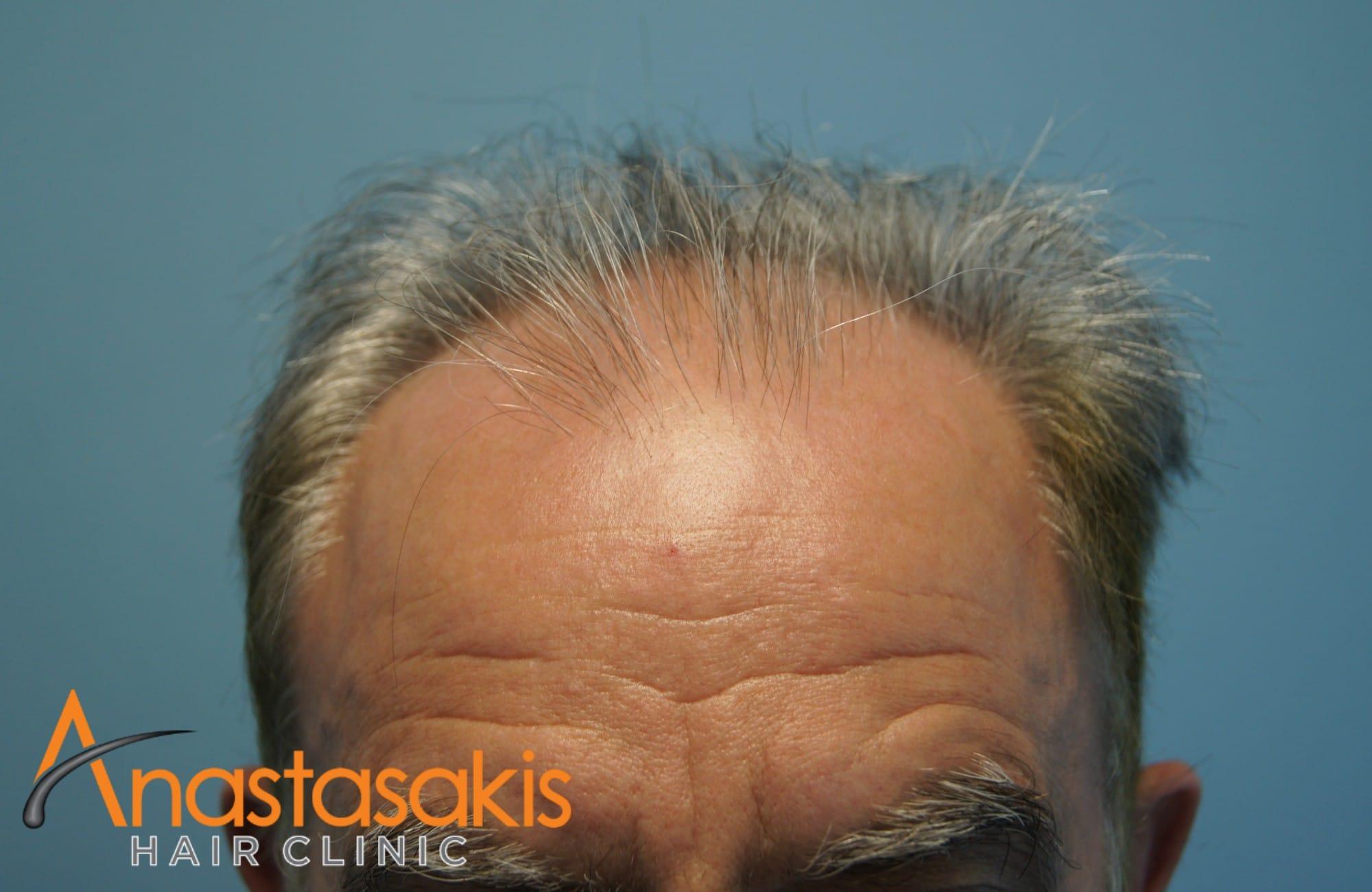 hairline ασθενους πριν τη μεταμοσχευση μαλλιων με 3650 fus